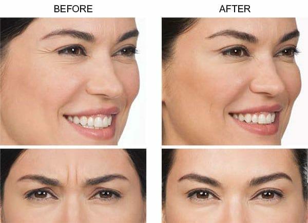 Botox Allergan Before n After