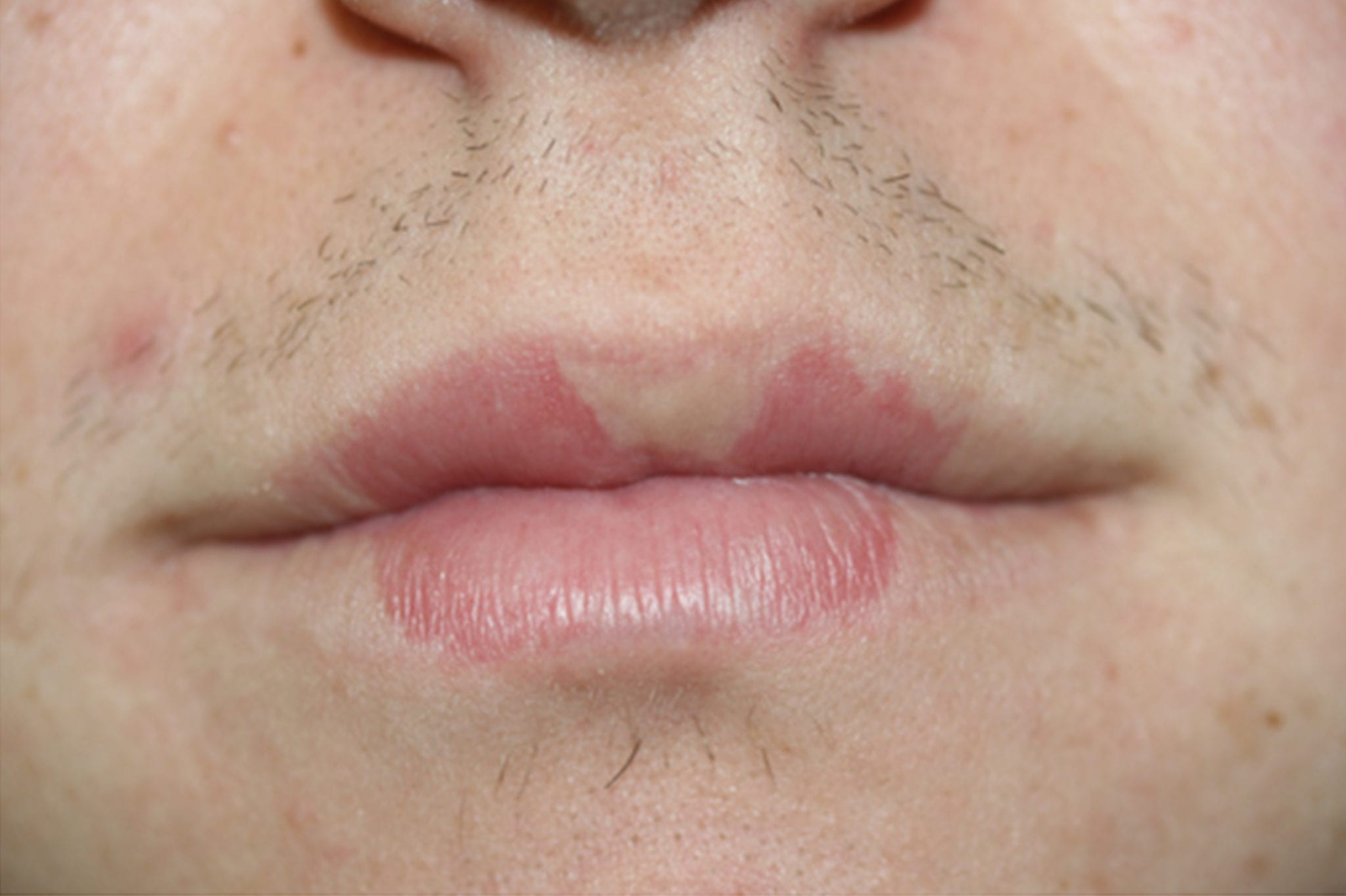 Lip-discoloration