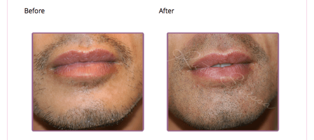 male lips before and after