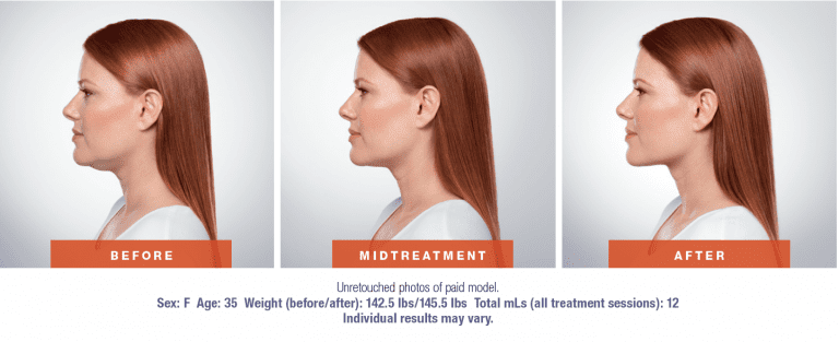 Kybella Before and After Picture