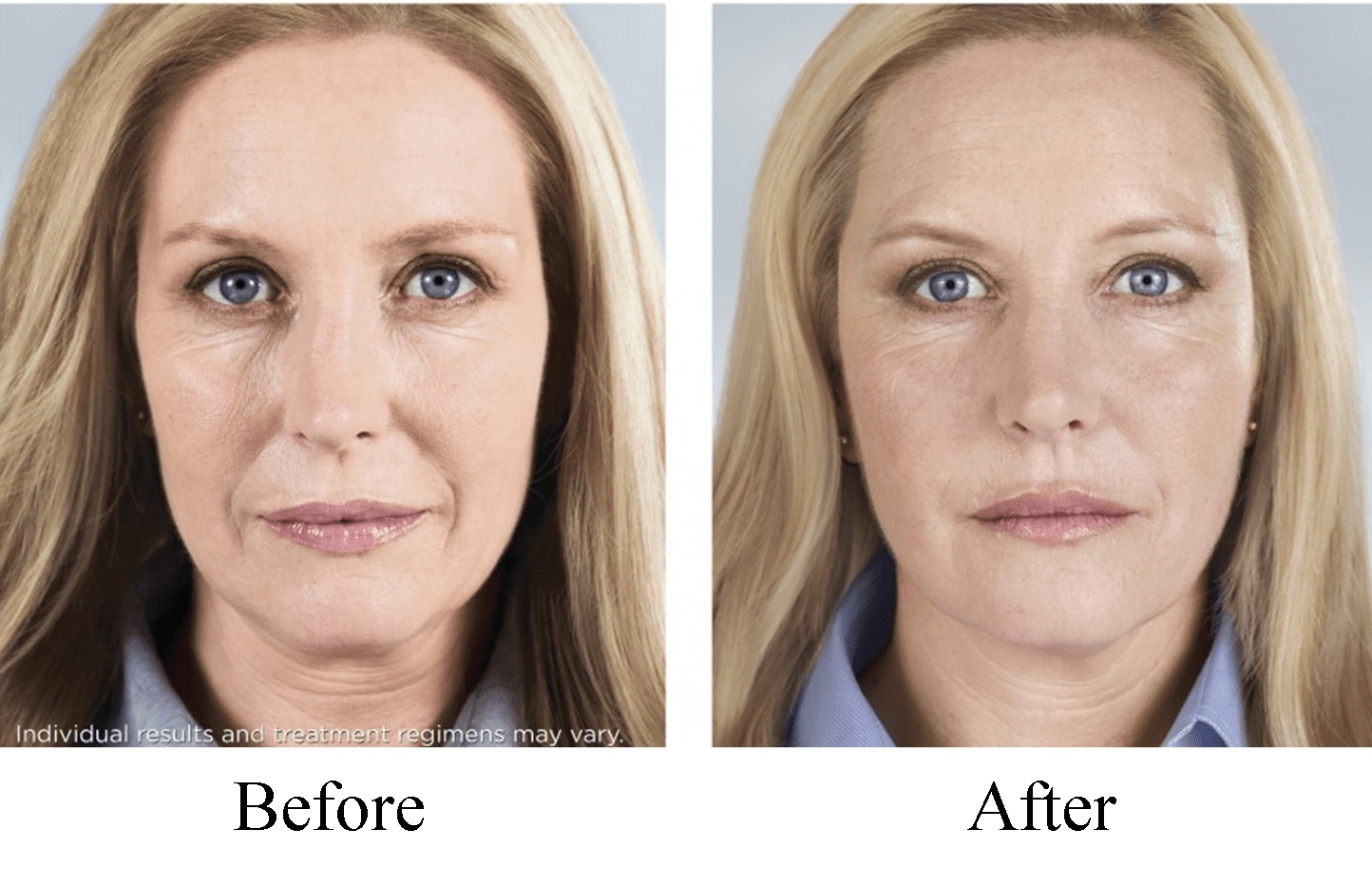 Sculptra Lipotrophy Before and After