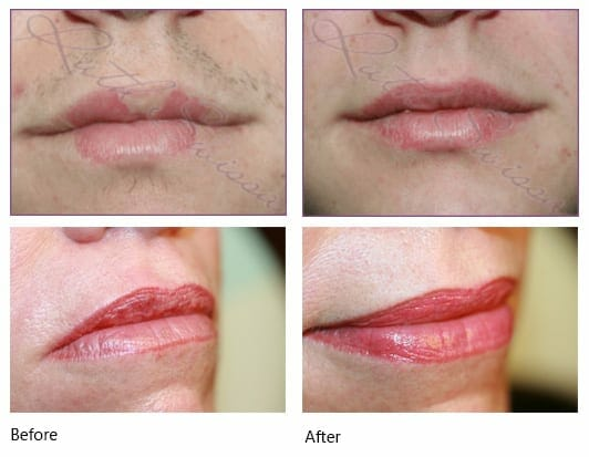 female lips before and after