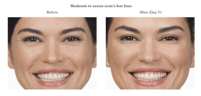 moderate to severe crow's feet lines before and after