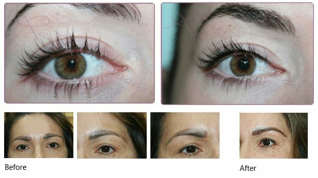 Natural Permanent Makeup before and after