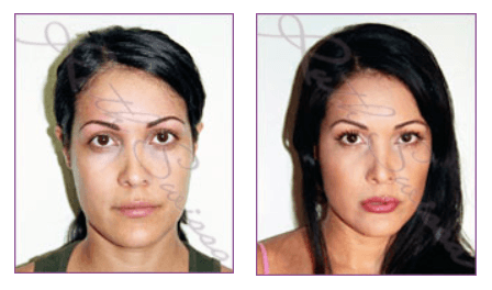 natural-permanent-makeup-los-angeles-full-face-permanent-cosmetic-makeup-ruth-swissa