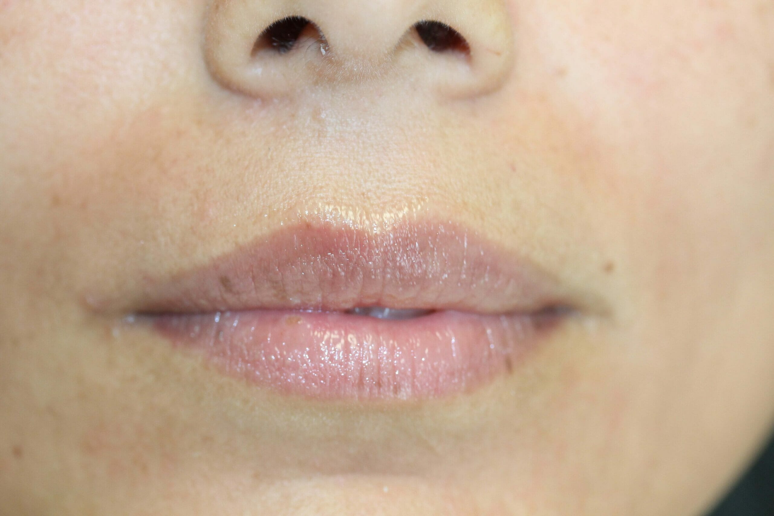 Permanent Lip Liner Color After Treatment