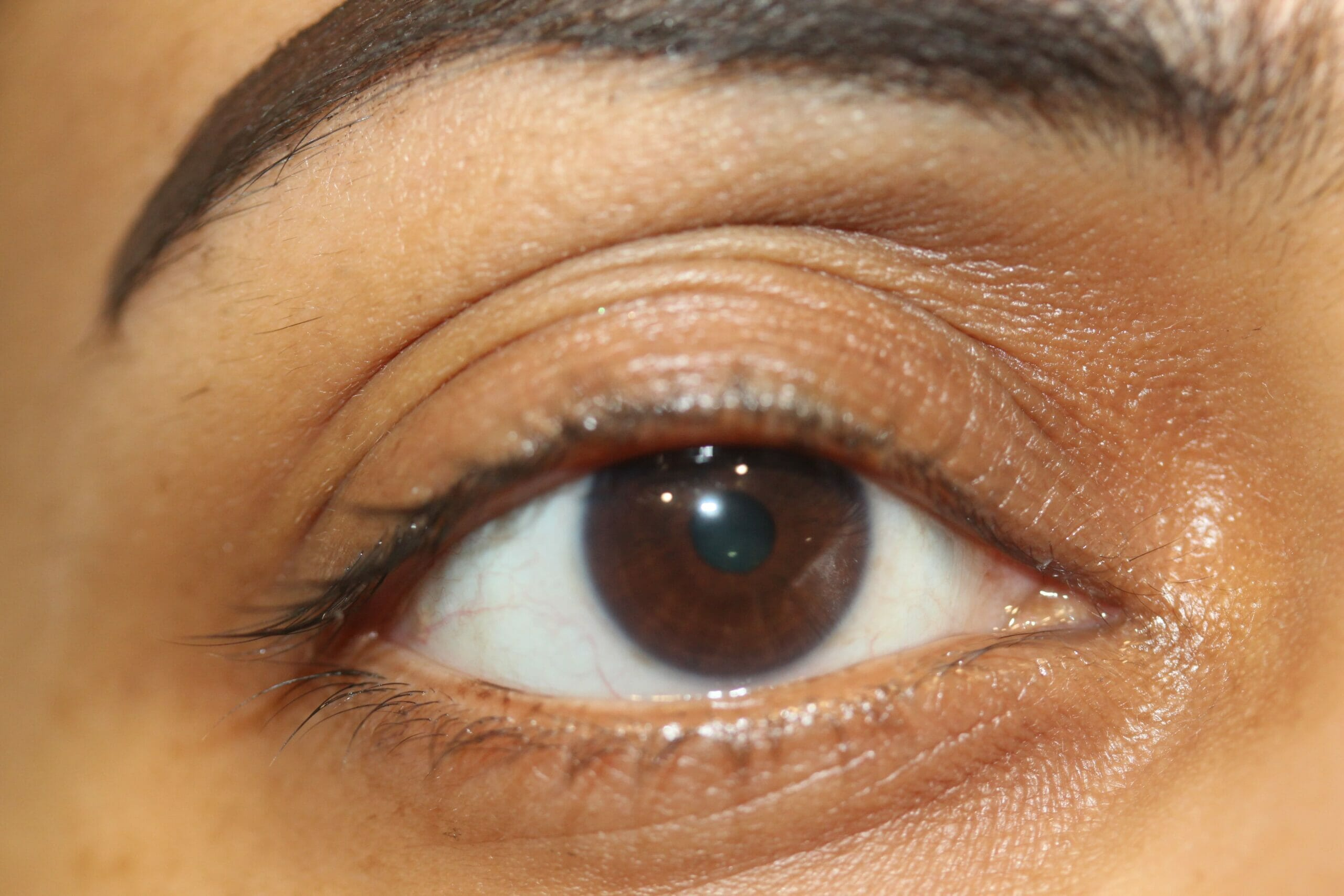 Permanent Eyeliner After Treatment
