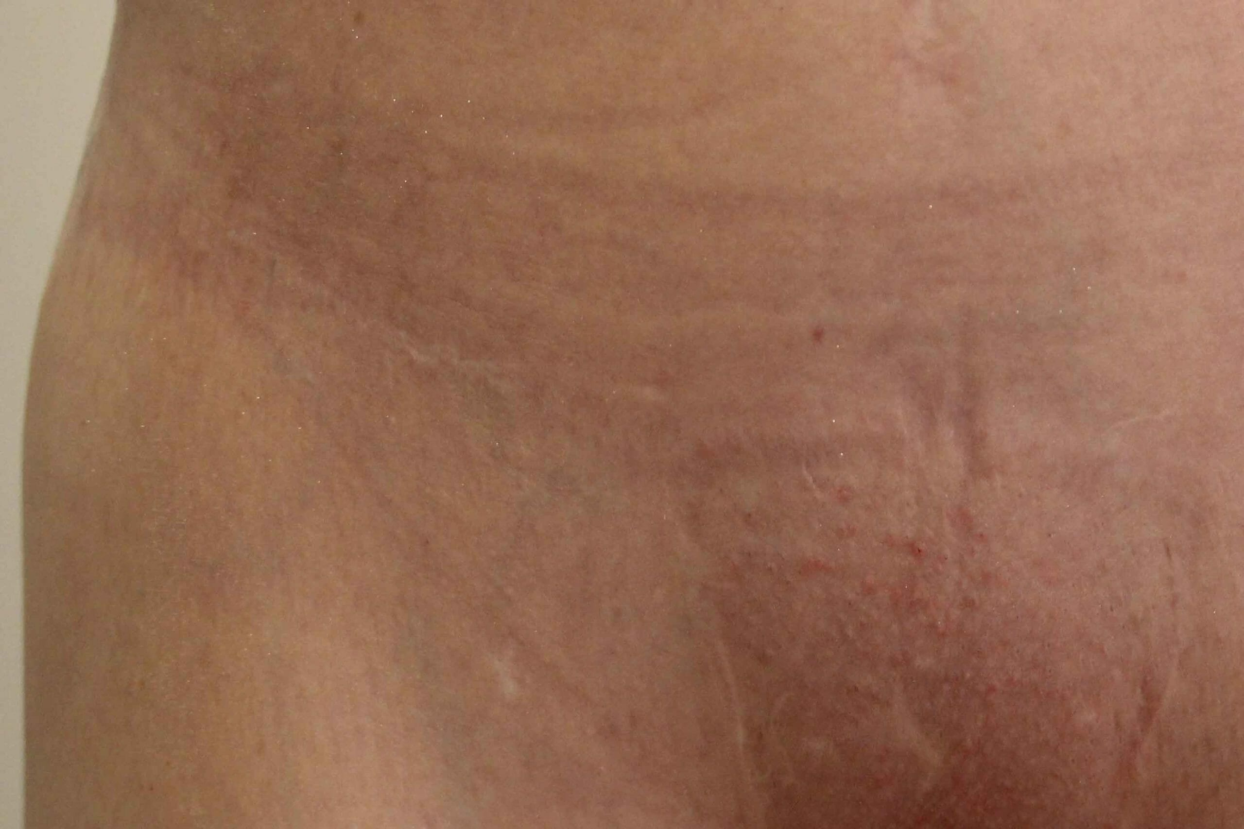 Scar Camouflage Before & After