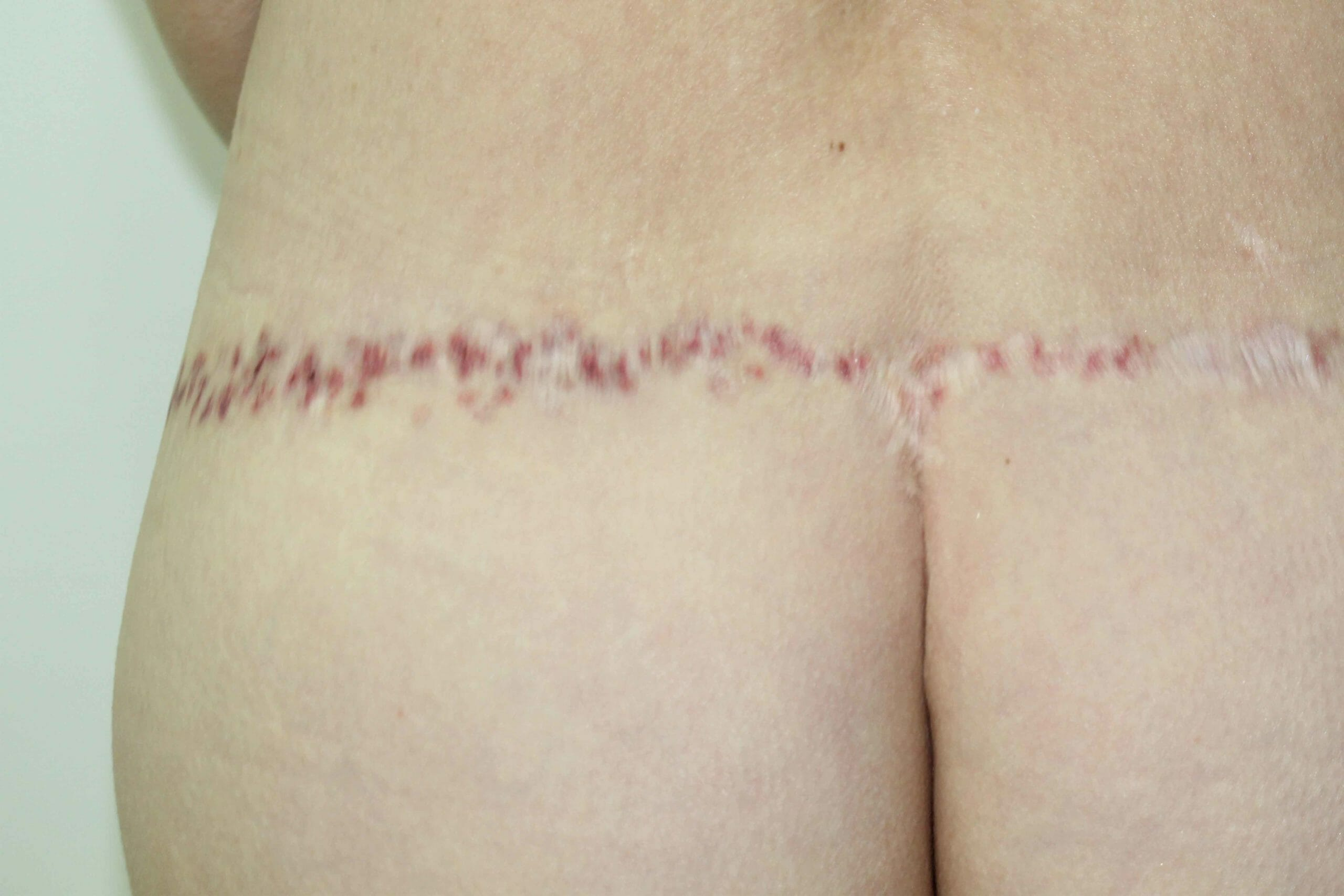 Scar Camouflage Photo Before Treatment