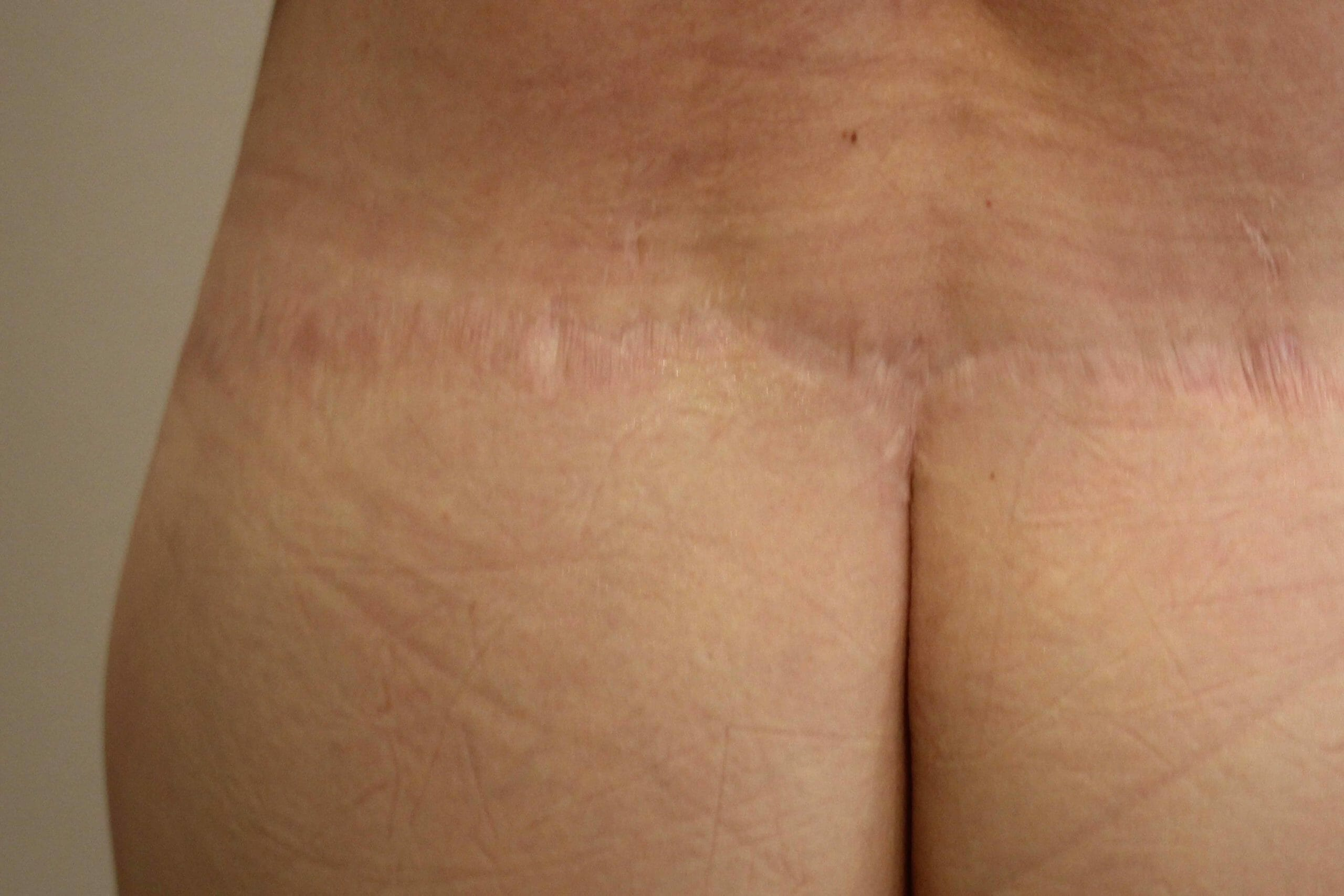 Before & After Scar Camouflage Treatment picture
