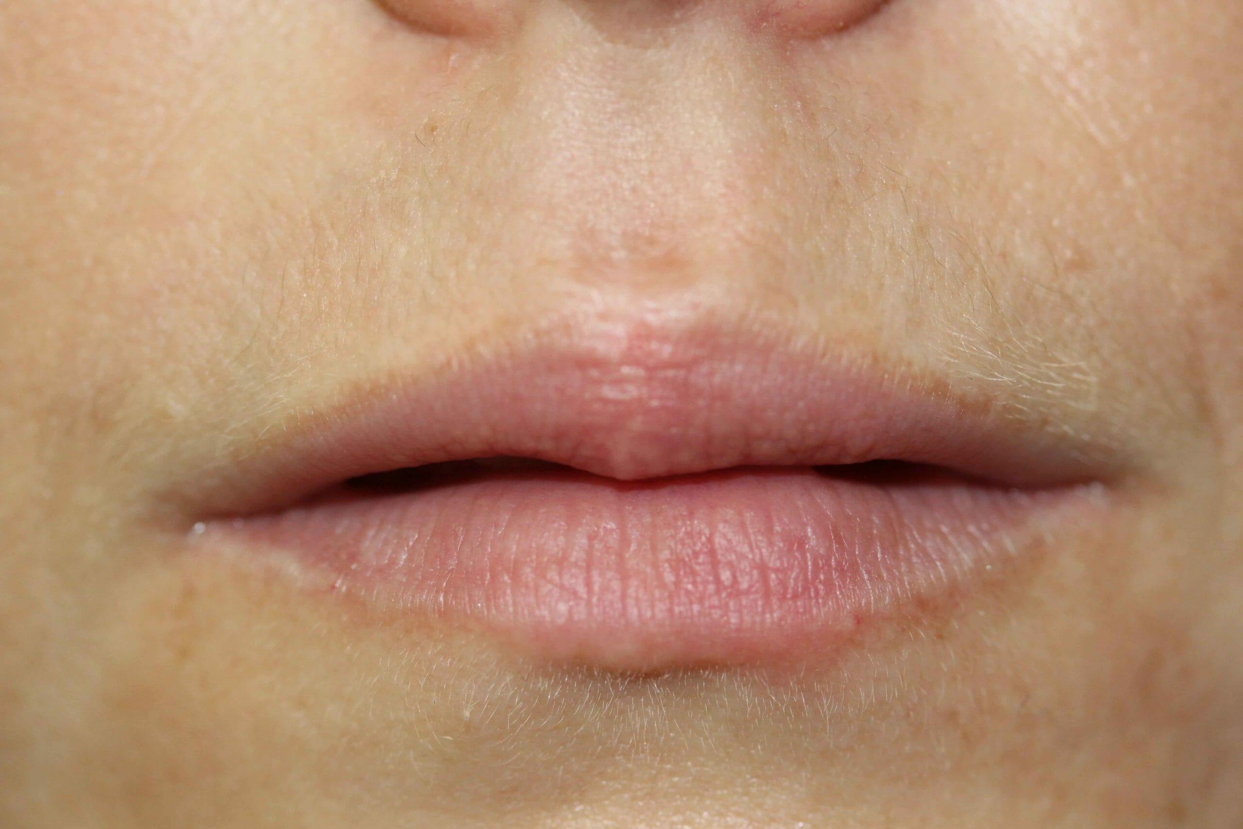 After Permanent Lip Liner Color Treatment