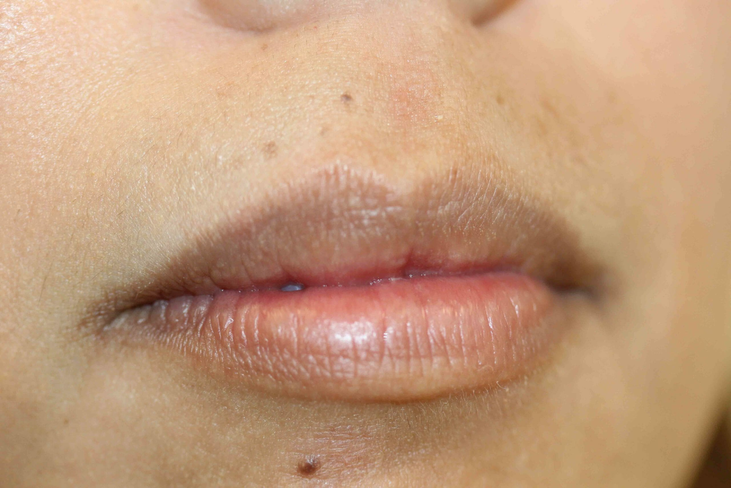 Permanent Lip Liner Color Before and After