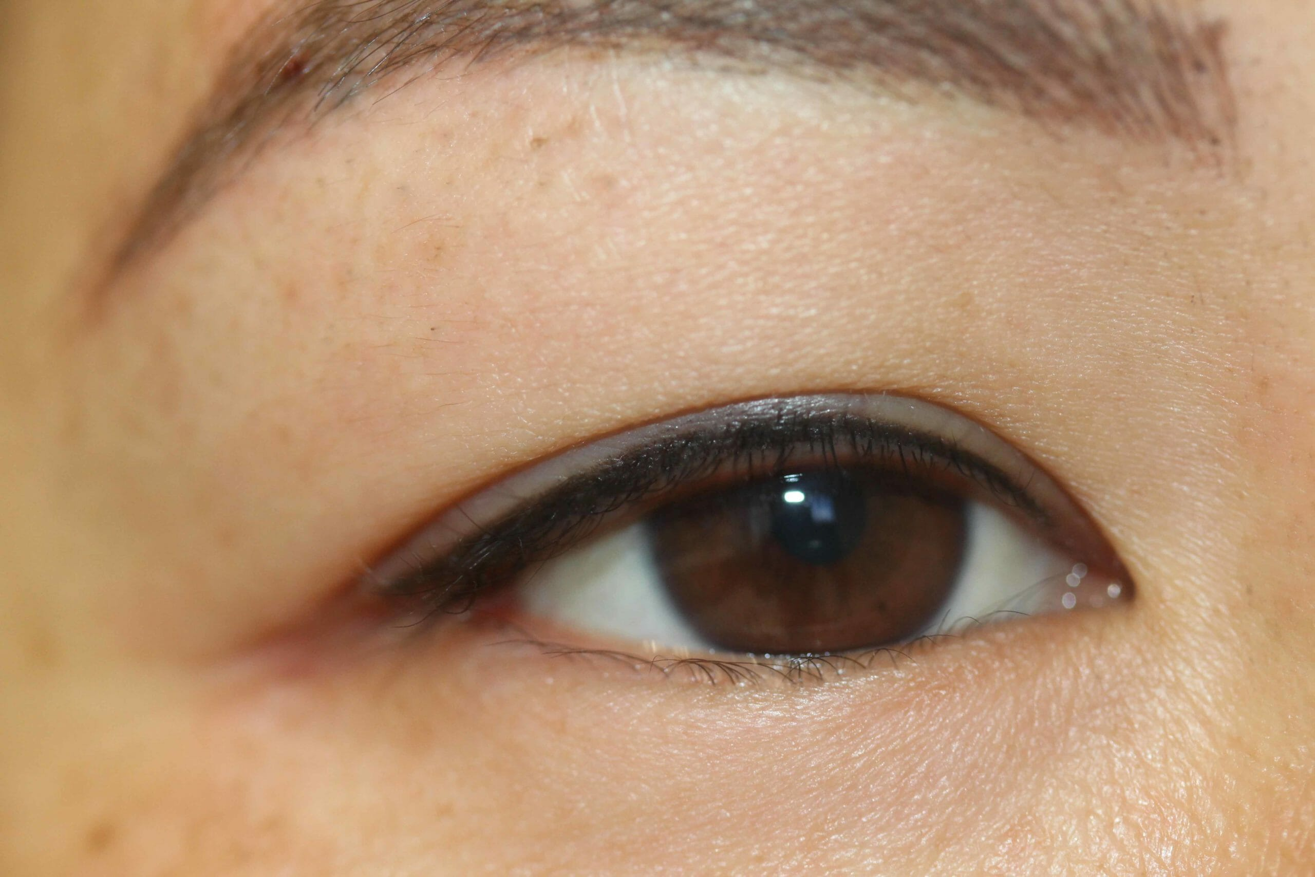 Permanent Eyeliner Before and After Pic