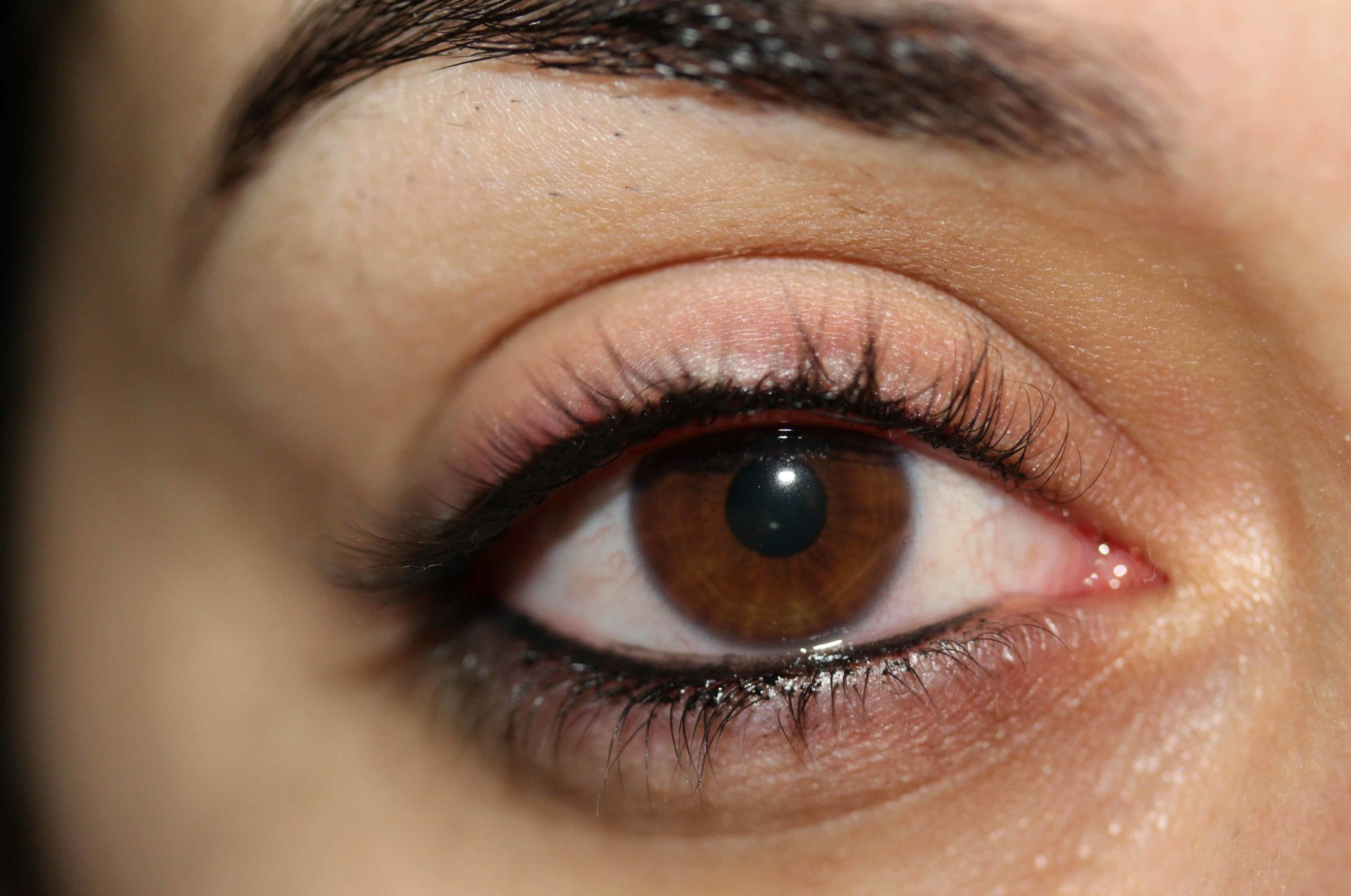 Permanent Eyeliner After Treatment Photo