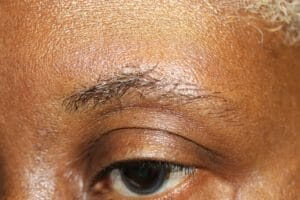 Eyebrow Hair Stages