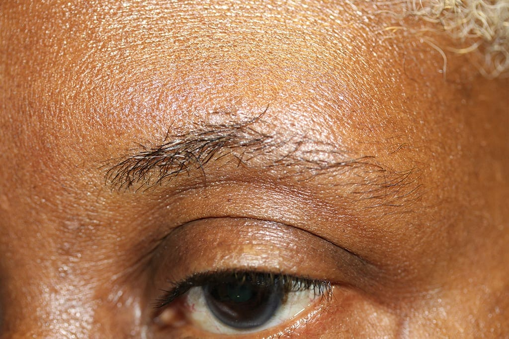 Eyebrows Ruth Before