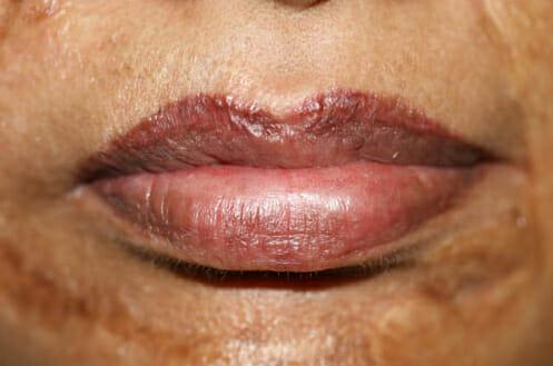 Permanent Lip liner & Color Beofre & After Treatment