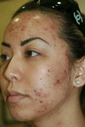 Acne Treatment Before Image