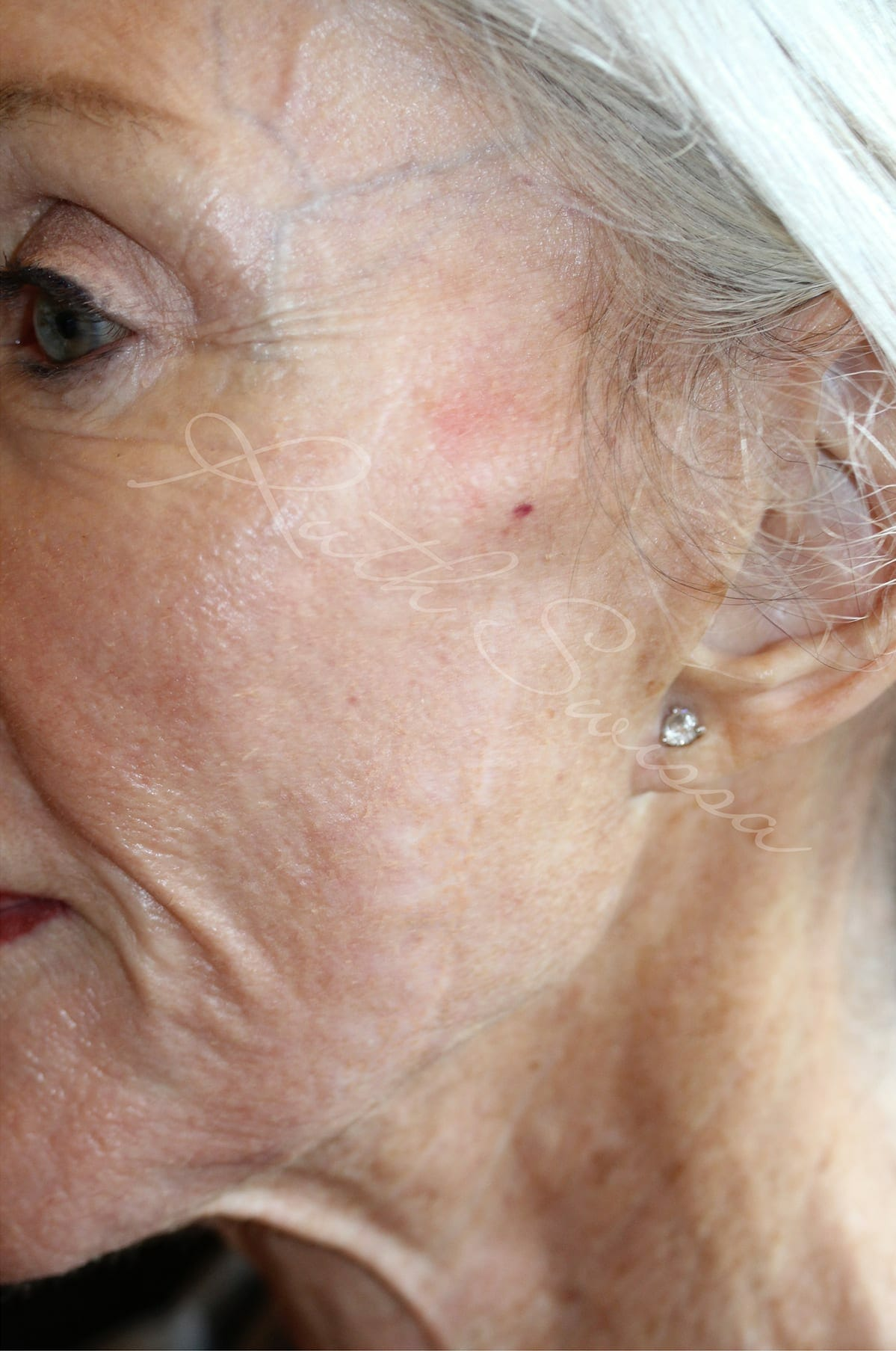 Permanent Makeup for Scar Camouflage