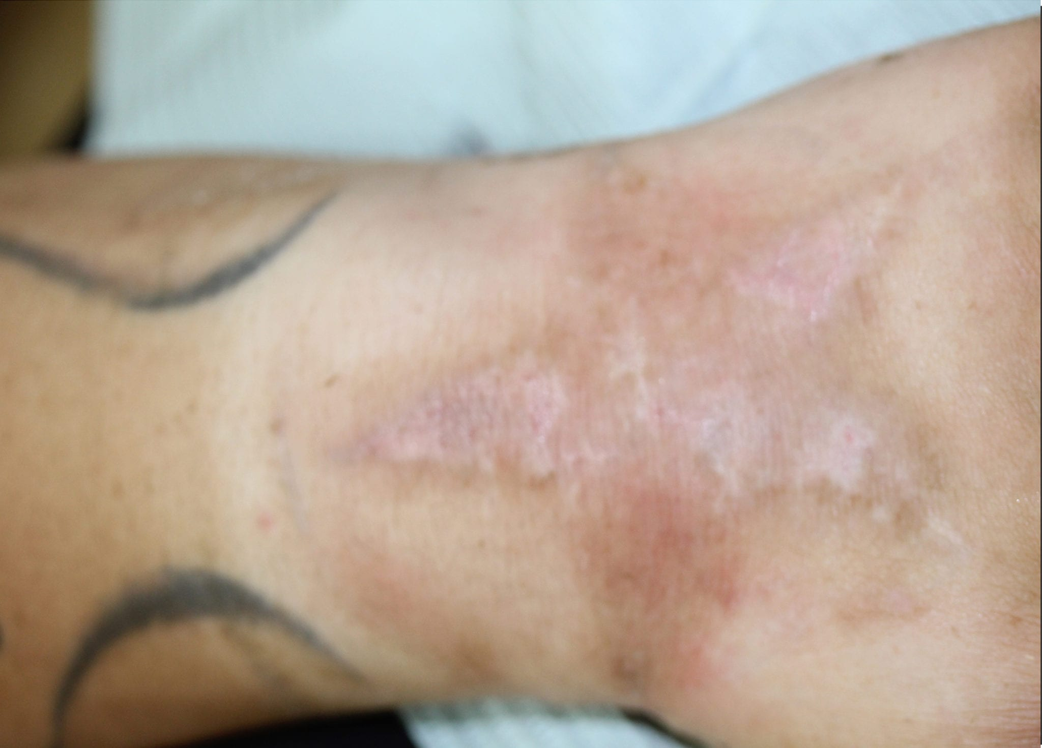 Before Scar Camouflage Treatment Photo