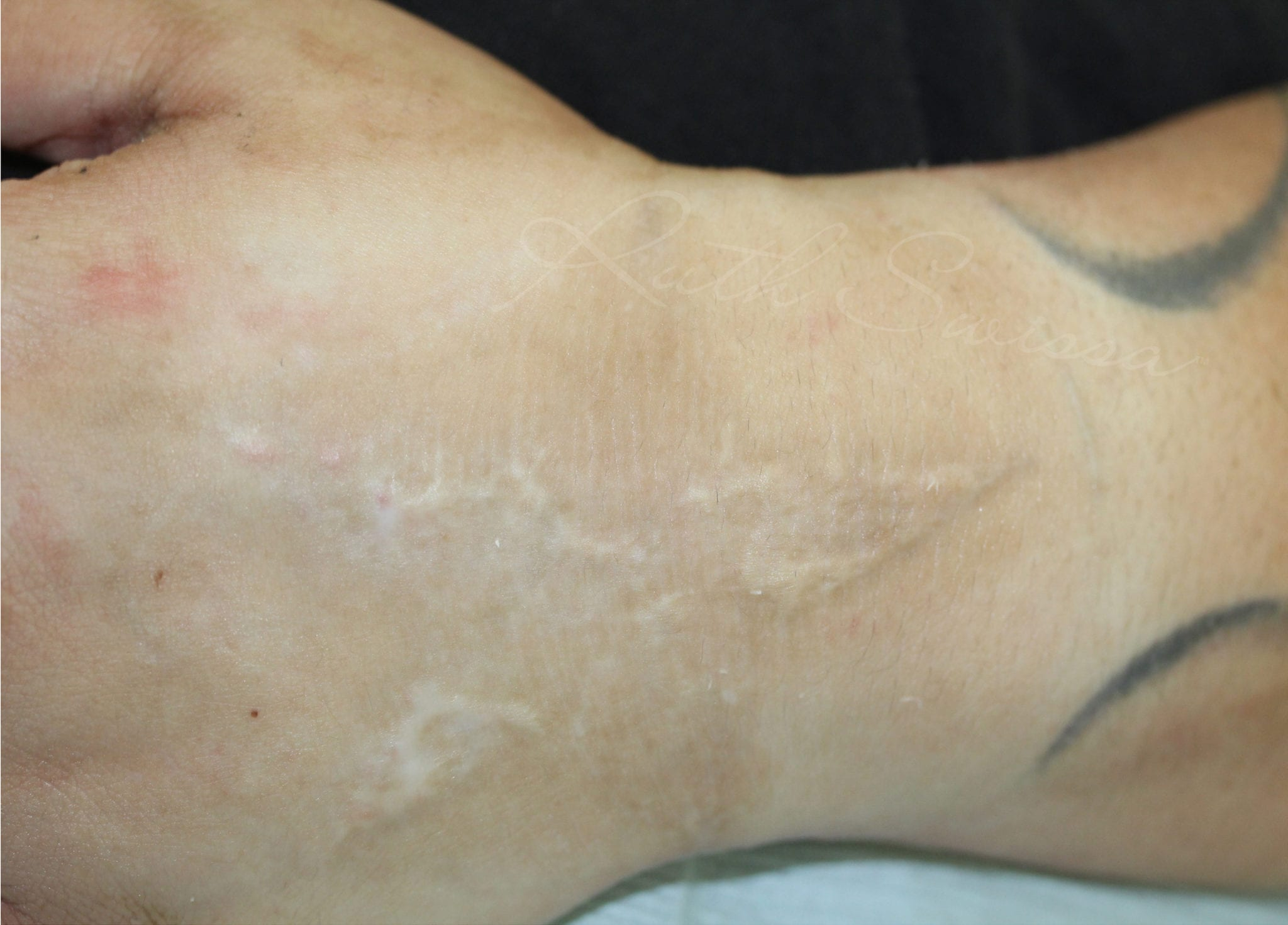Scar Camouflage Before Treatment Photo