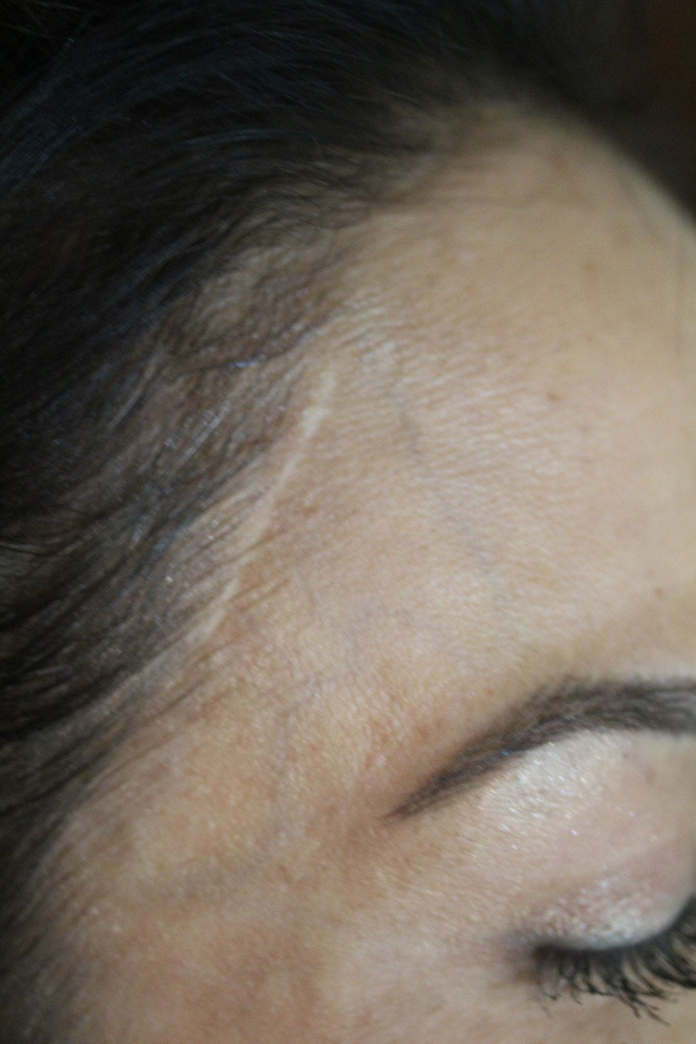 Scar Camouflage Before Treatment Image
