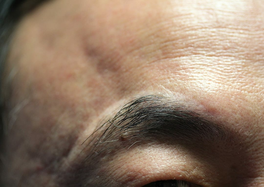 Permanent Makeup After Pictures