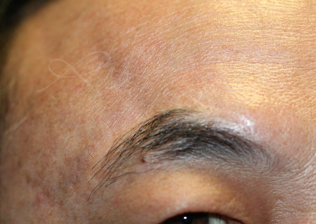Eyebrows Scar Camouflage Photo