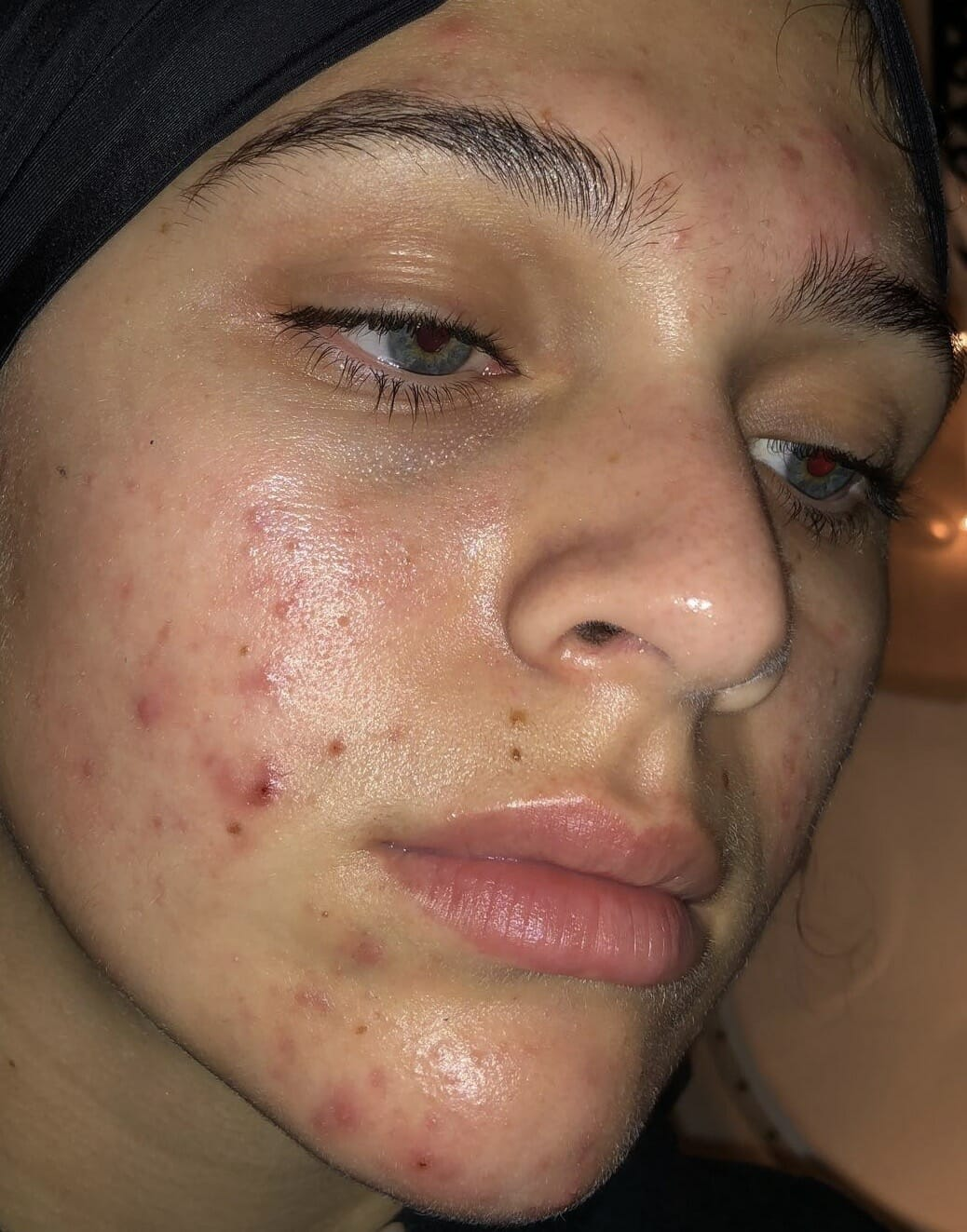 After Picture Acne Treatment