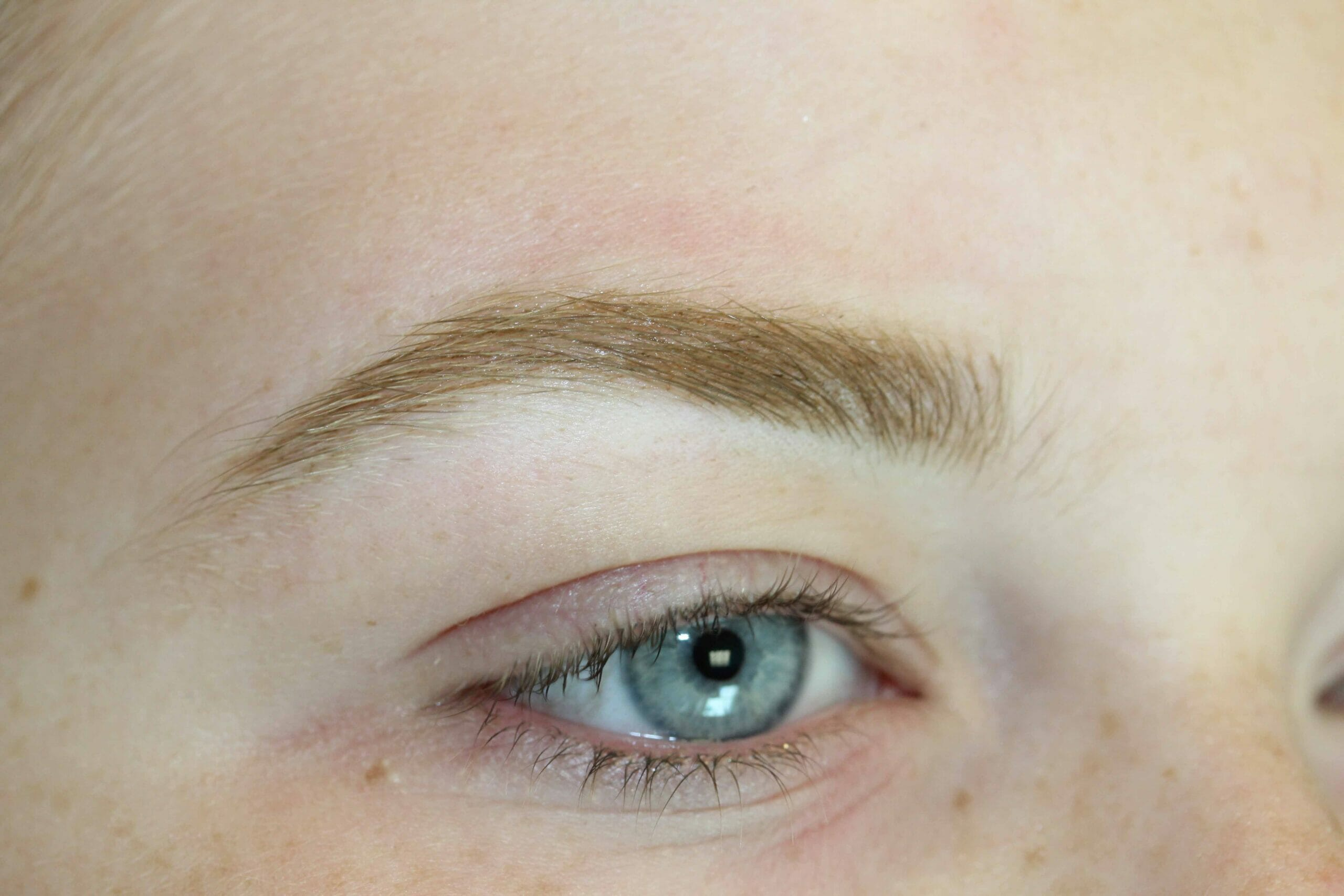 Eyebrow After Scaled Photo