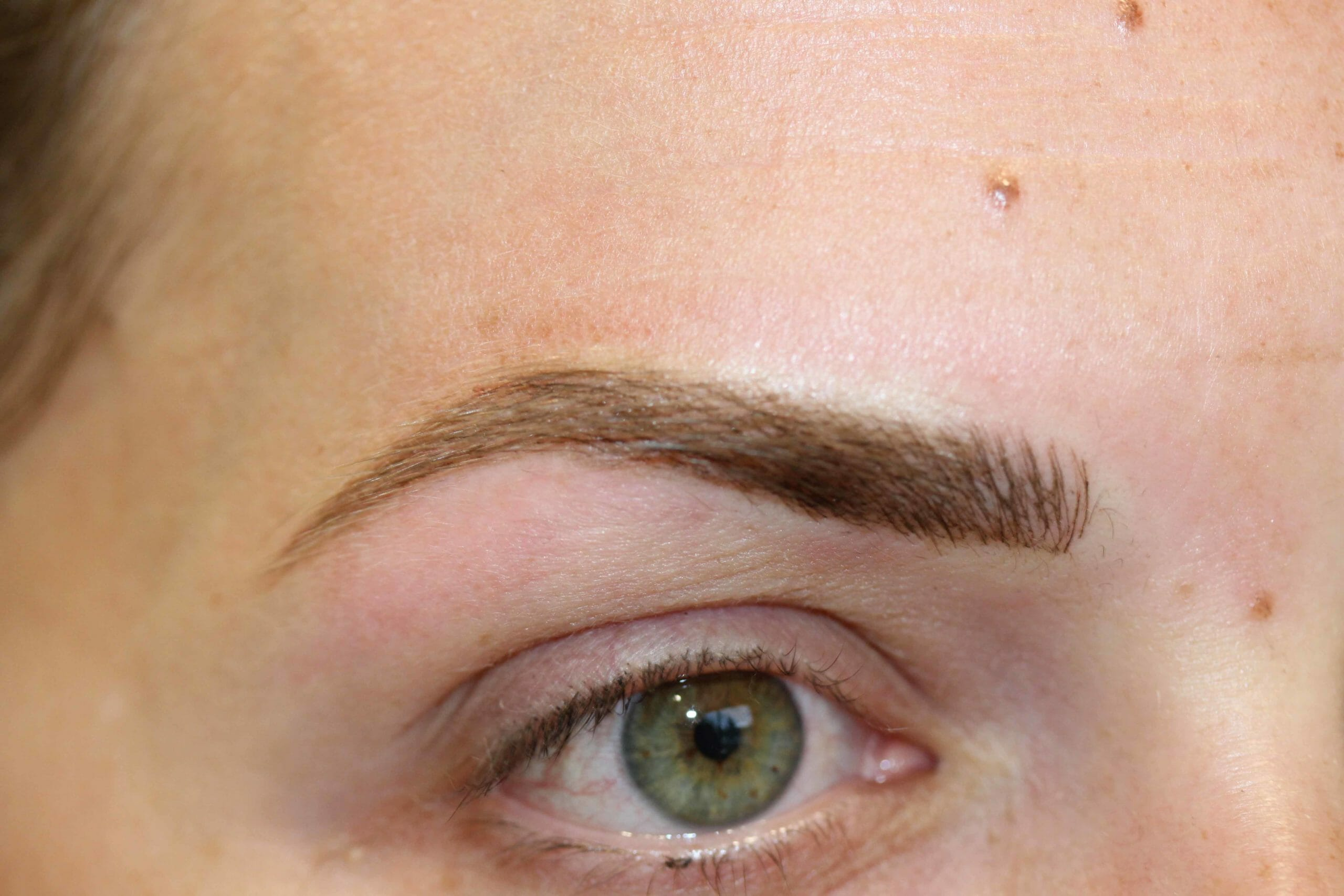 After & Before Eyebrow After Scaled