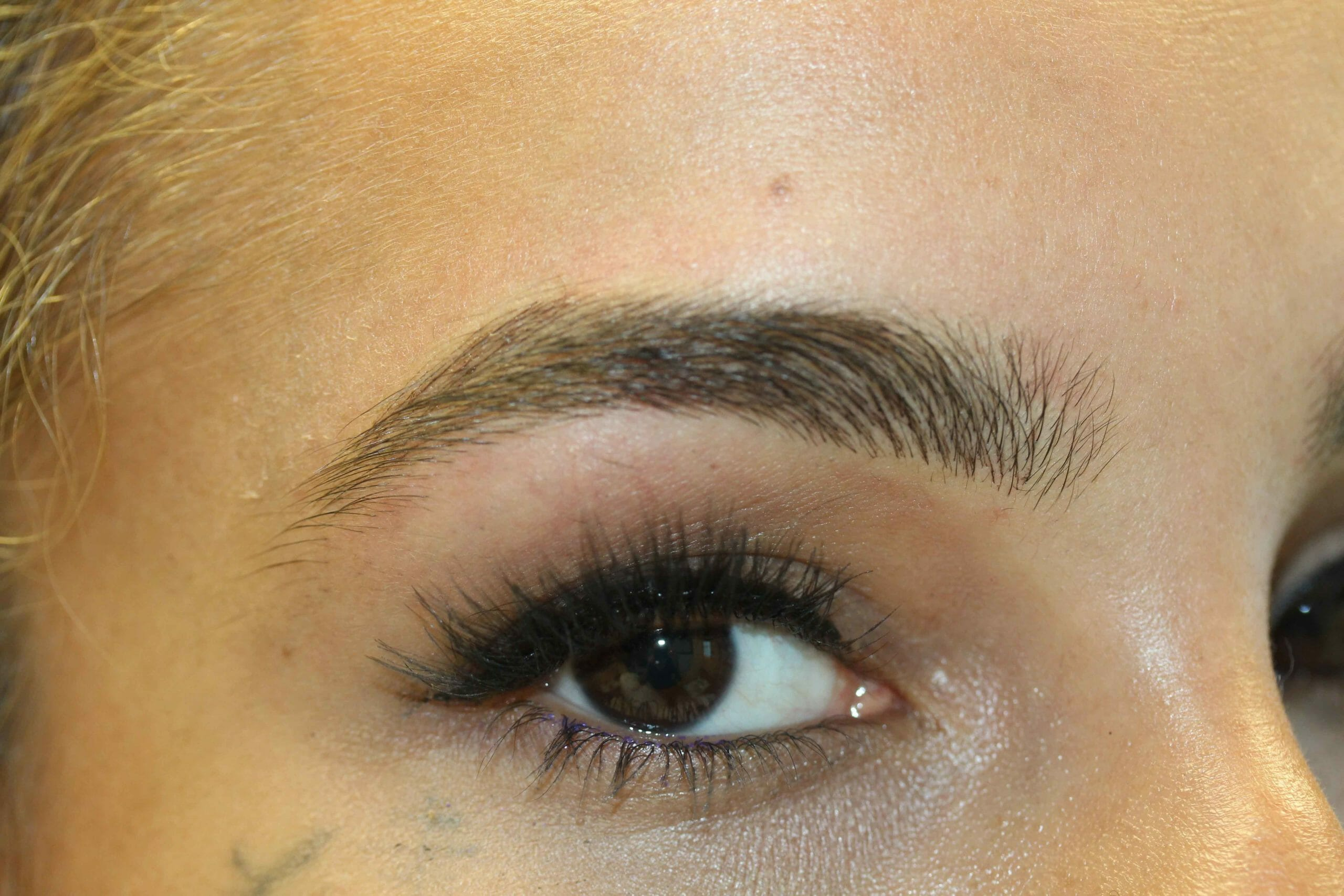 After Eyebrow Angle Scaled Picture