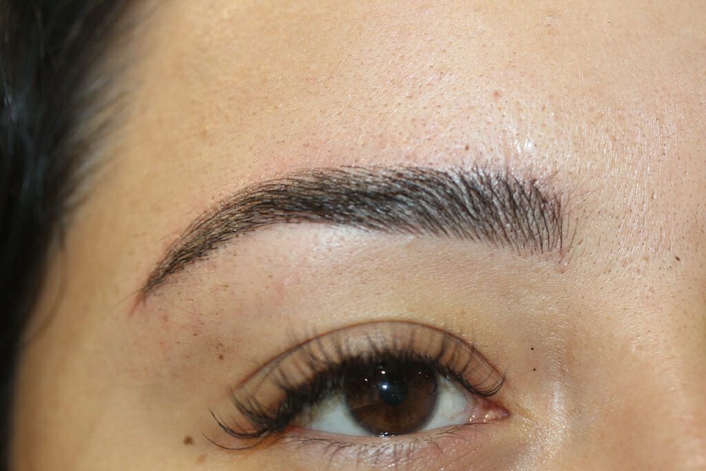 Eyebrow Treatment Before & After