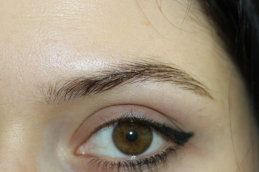 Eyebrow After Treatment Photo