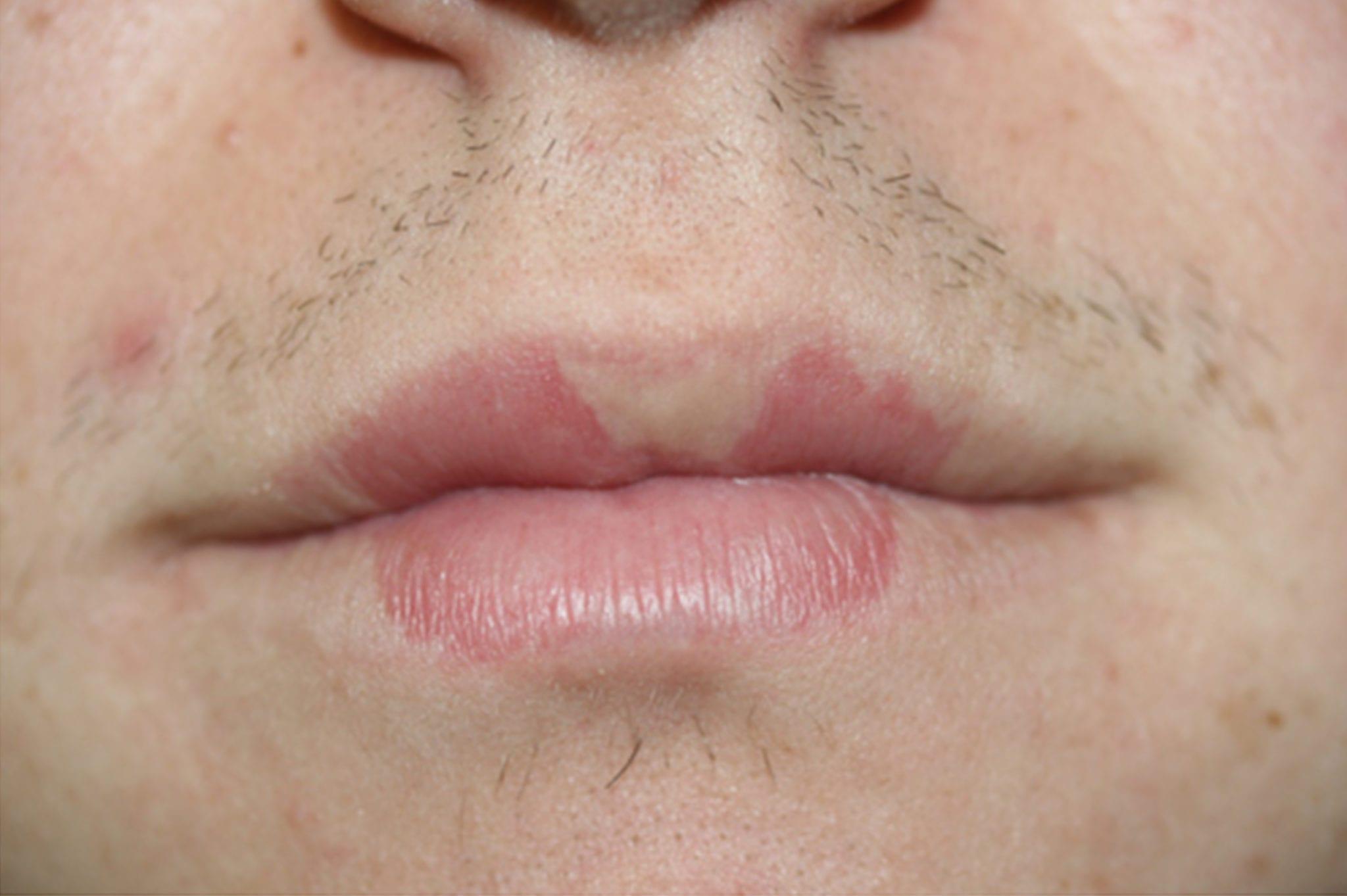 Lip-discoloration