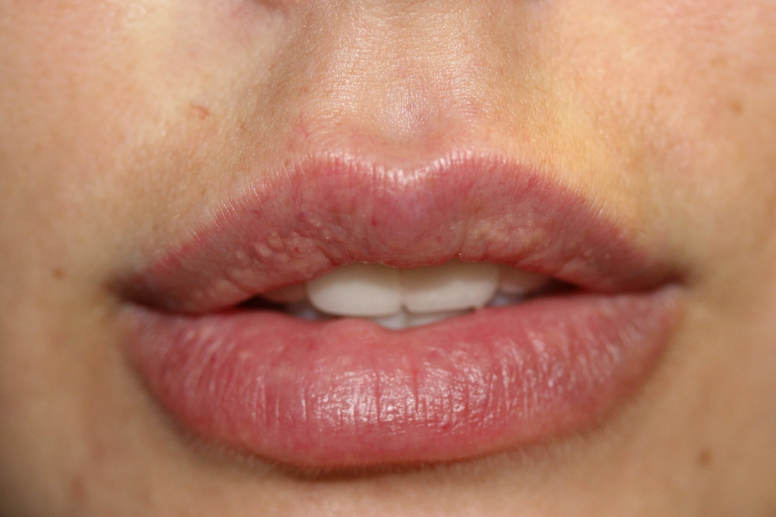Lips Before scaled