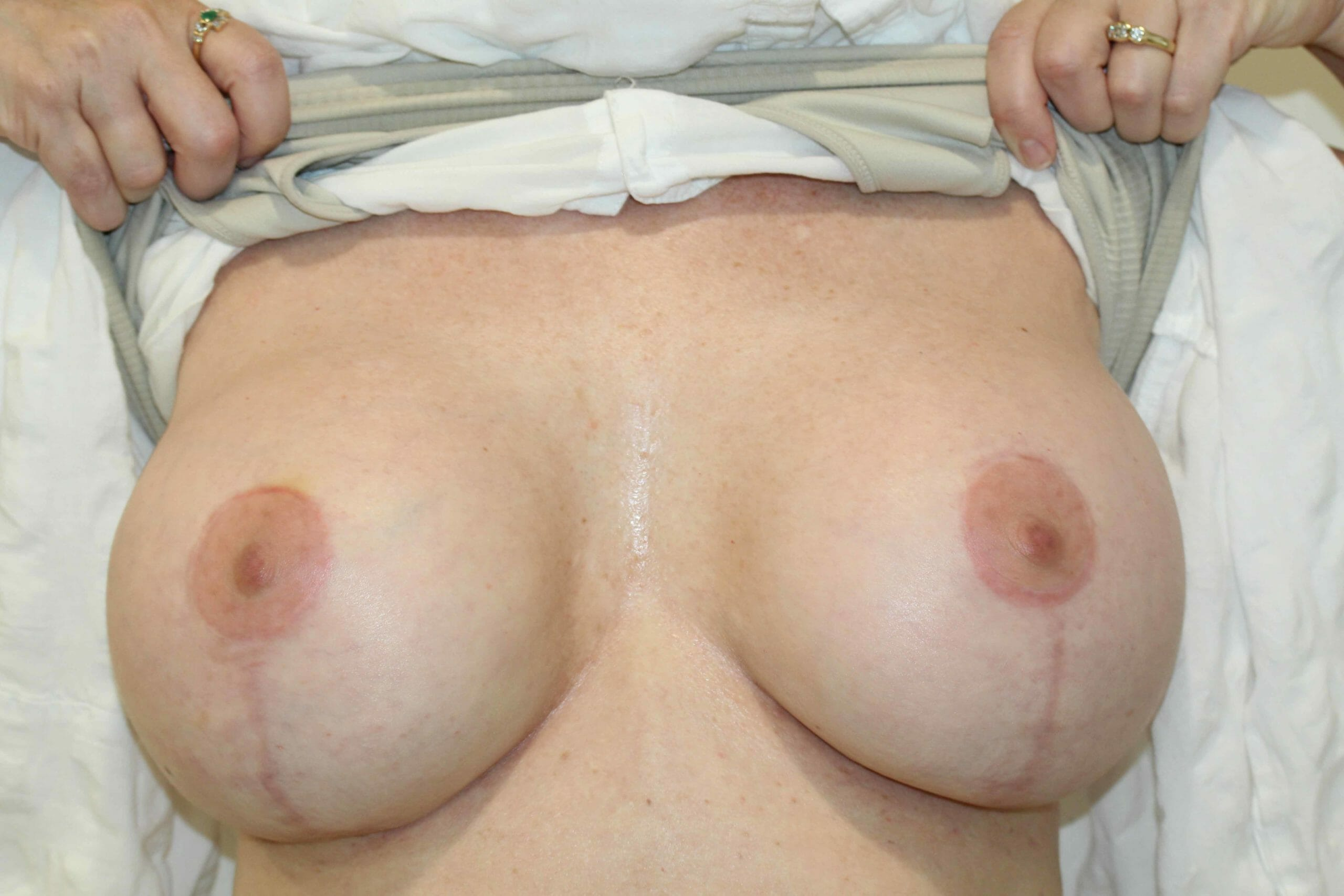 Breast Augmentation Scar