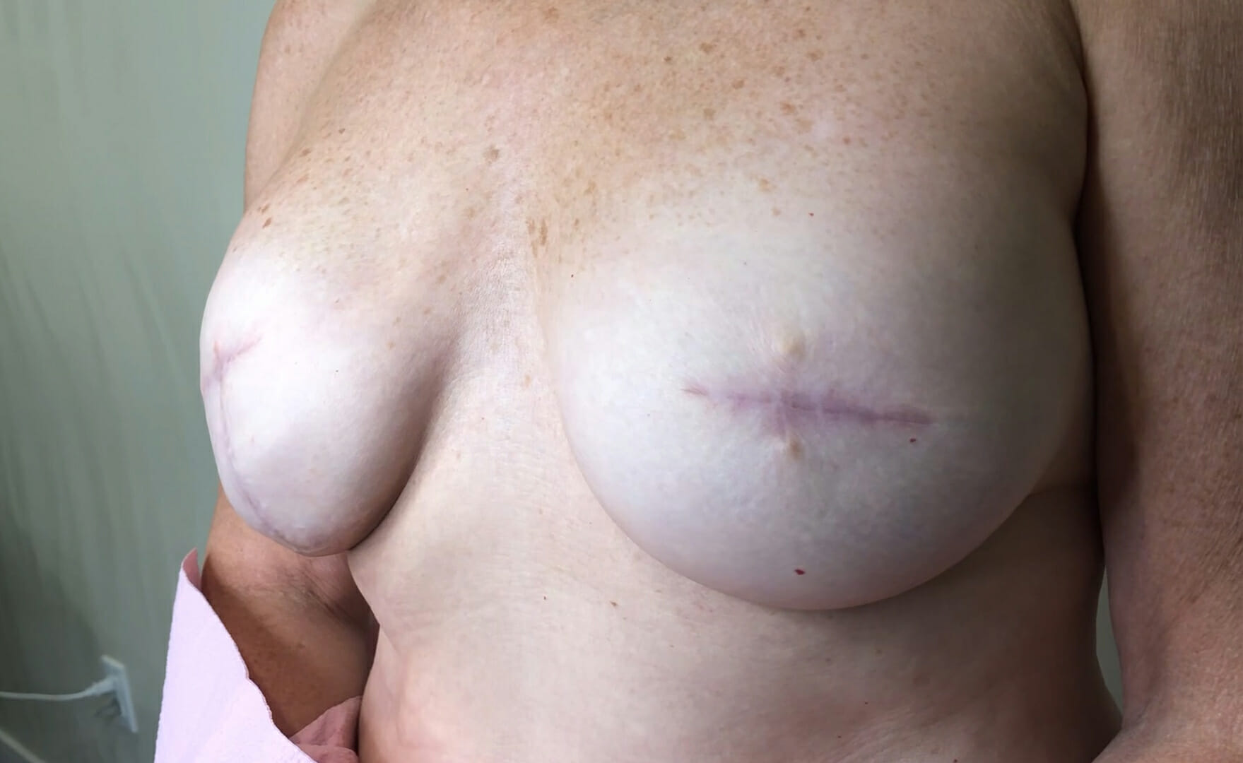 Breasts After Cancer Treatment