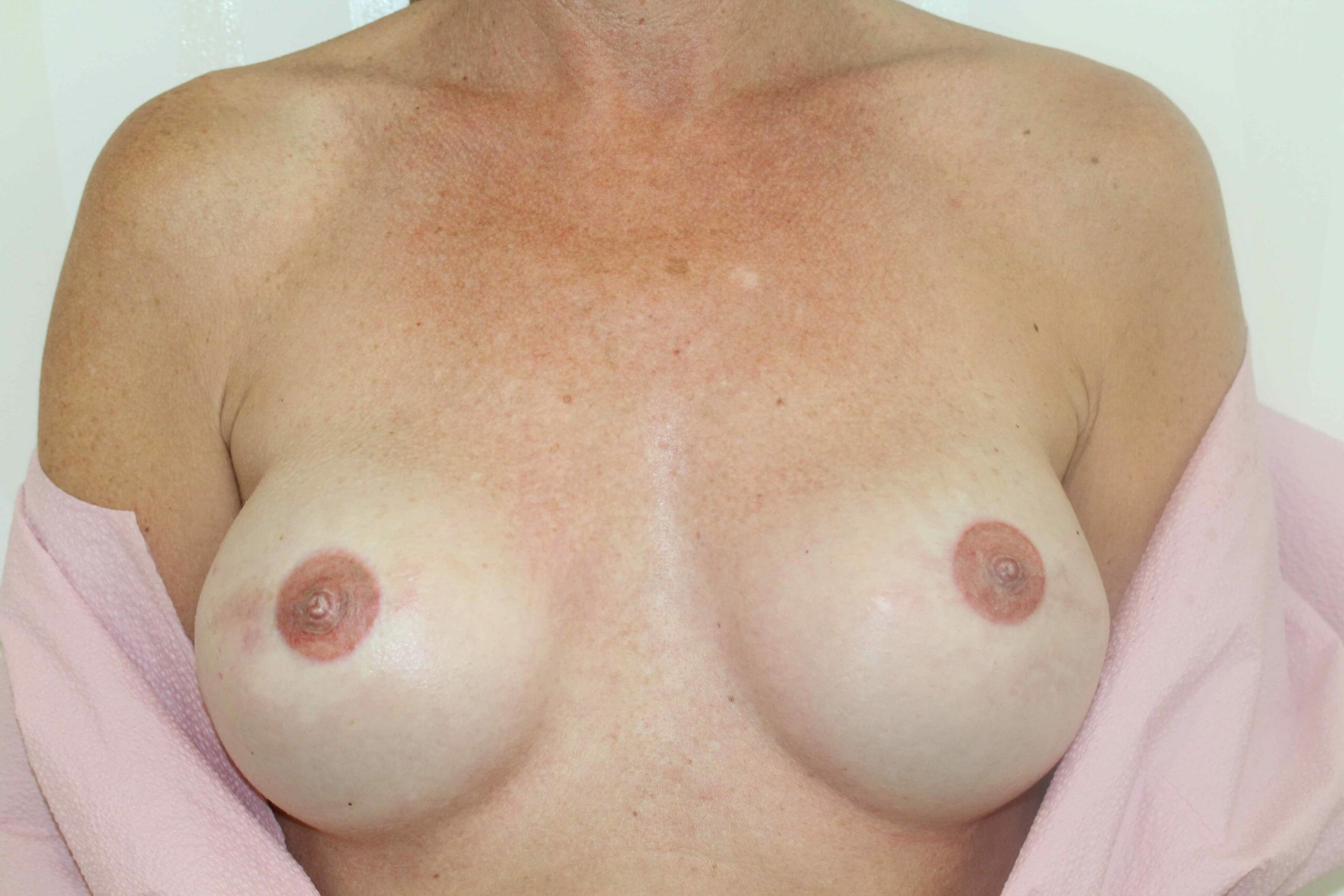 Before Treatment Breast Cancer Picture