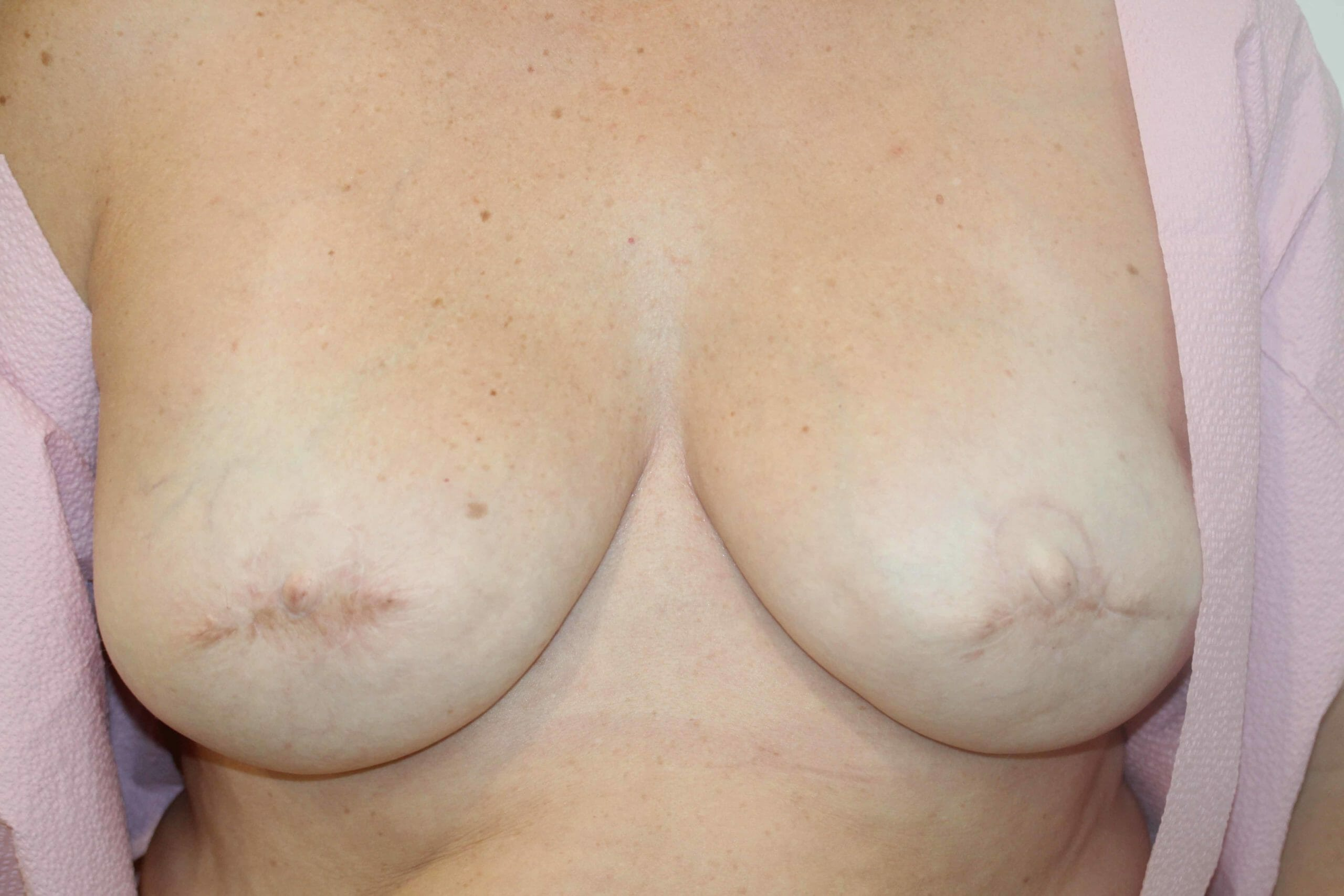 After Breast Cancer Treatment Picture