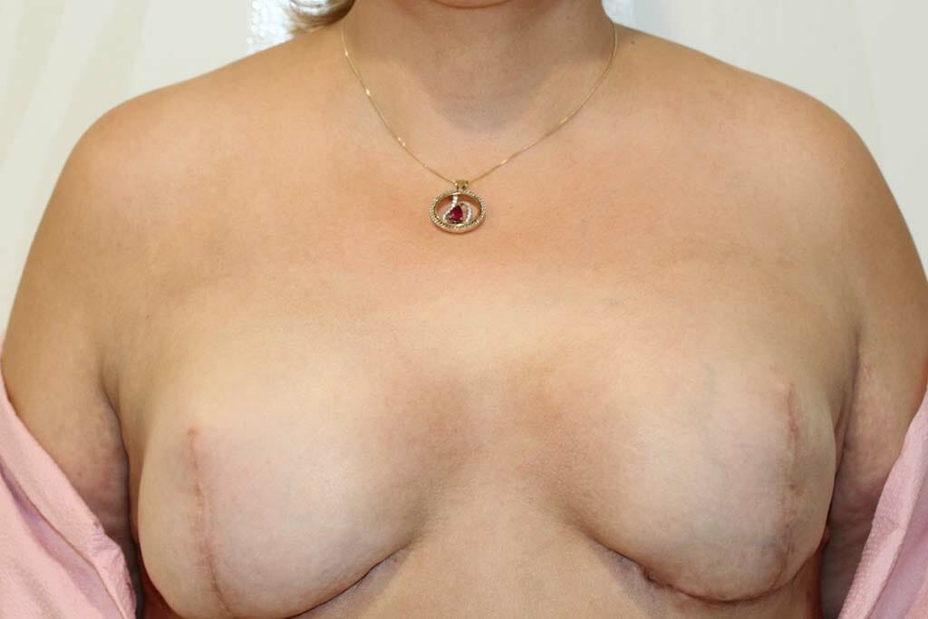 breast-cancer After Treatment Picture