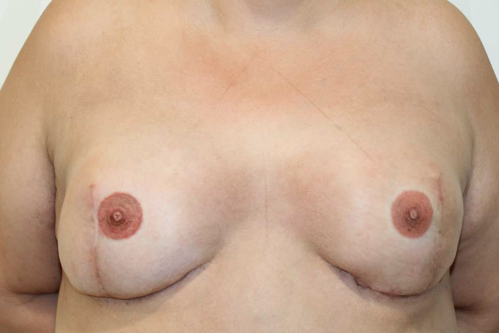 Breast Cancer Picture