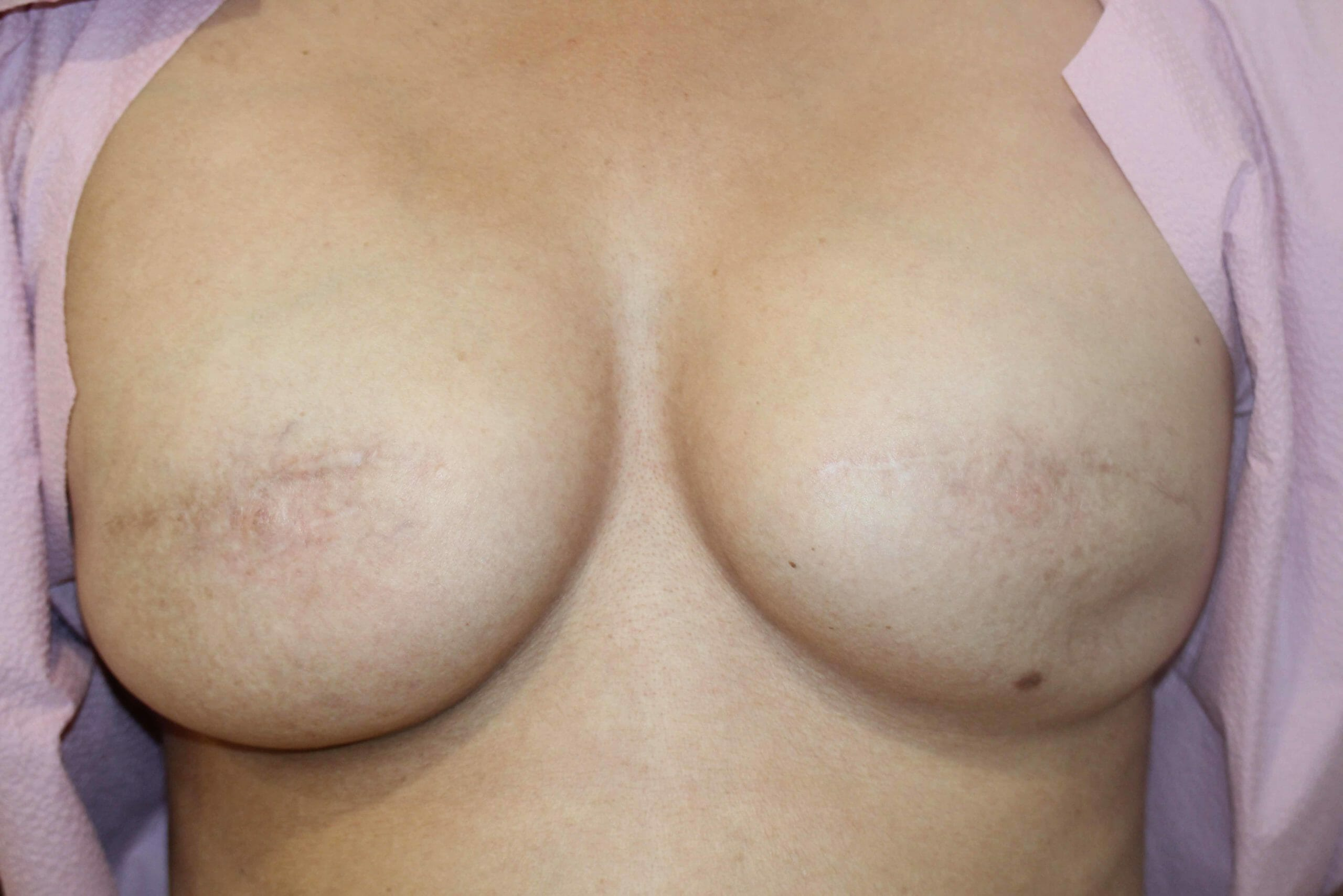 After Breast Cancer Treatment Image