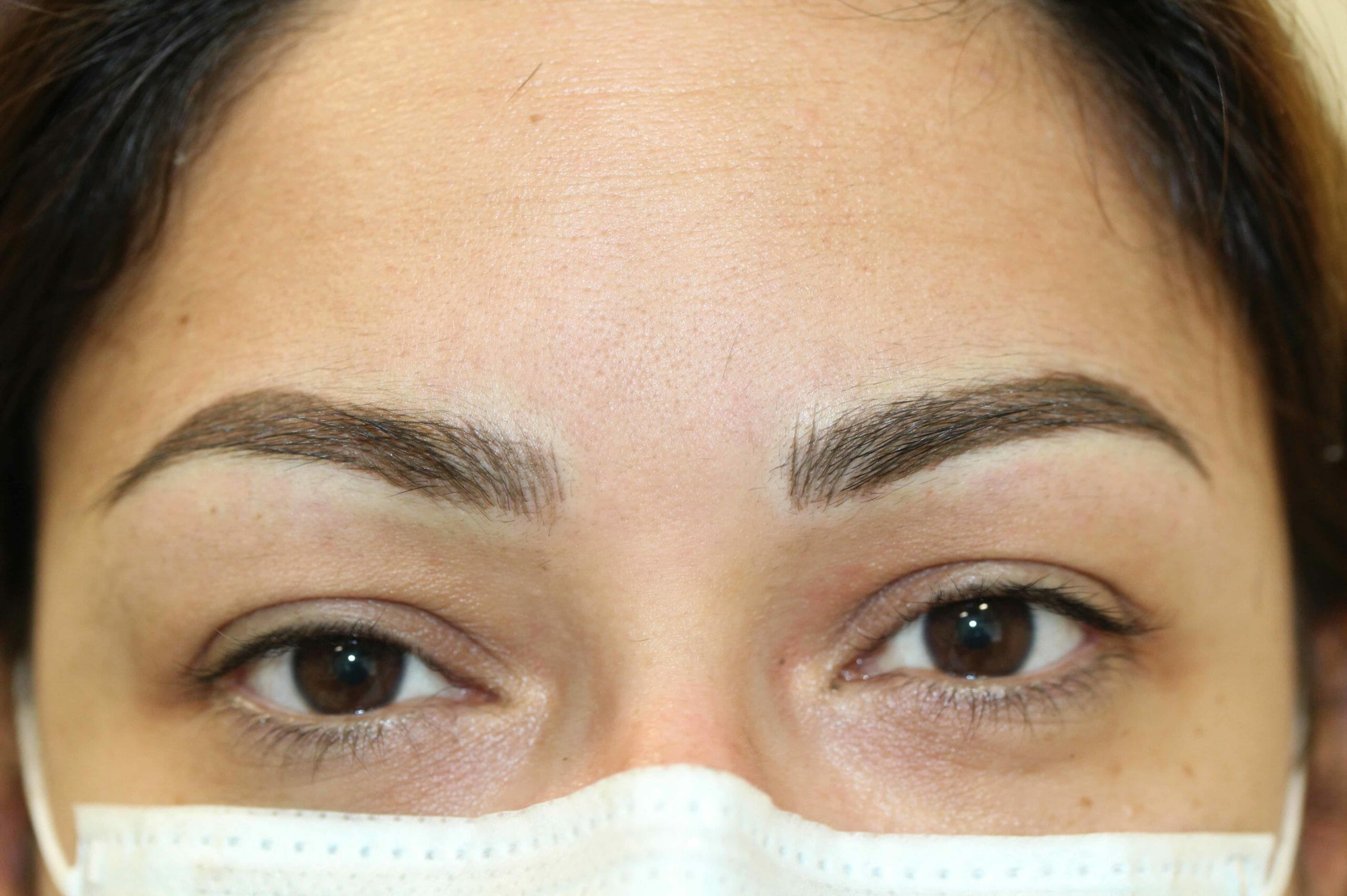 Eyebrows After Scaled