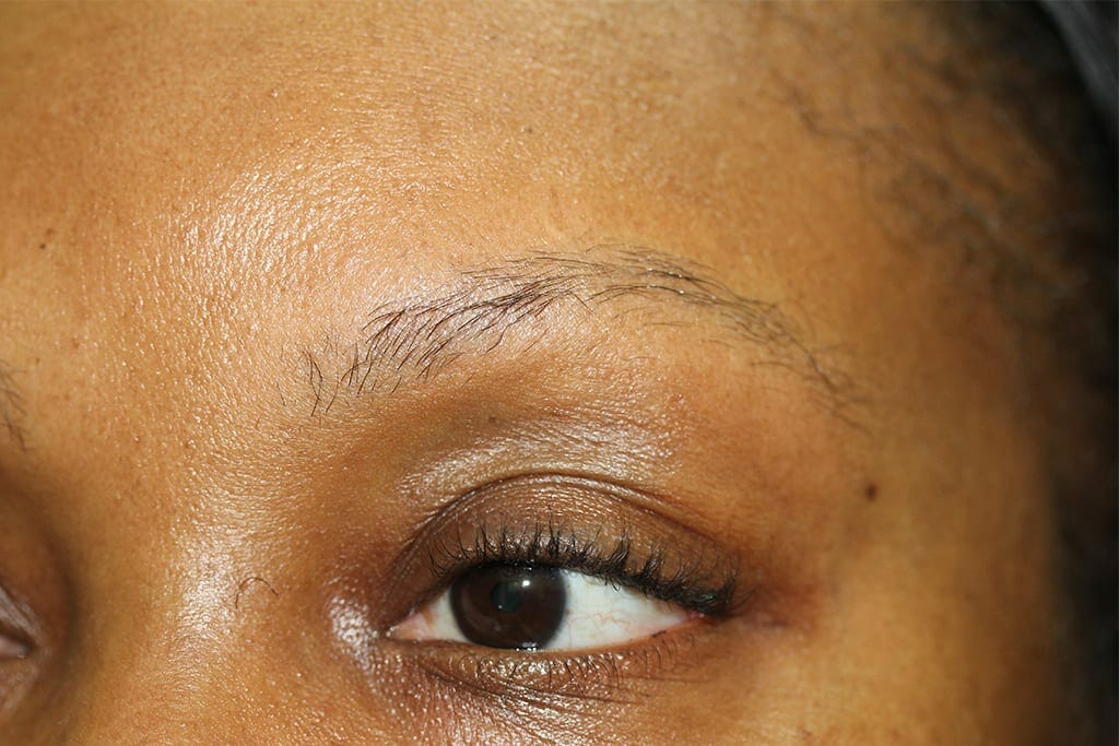 Eyebrows Before Picture