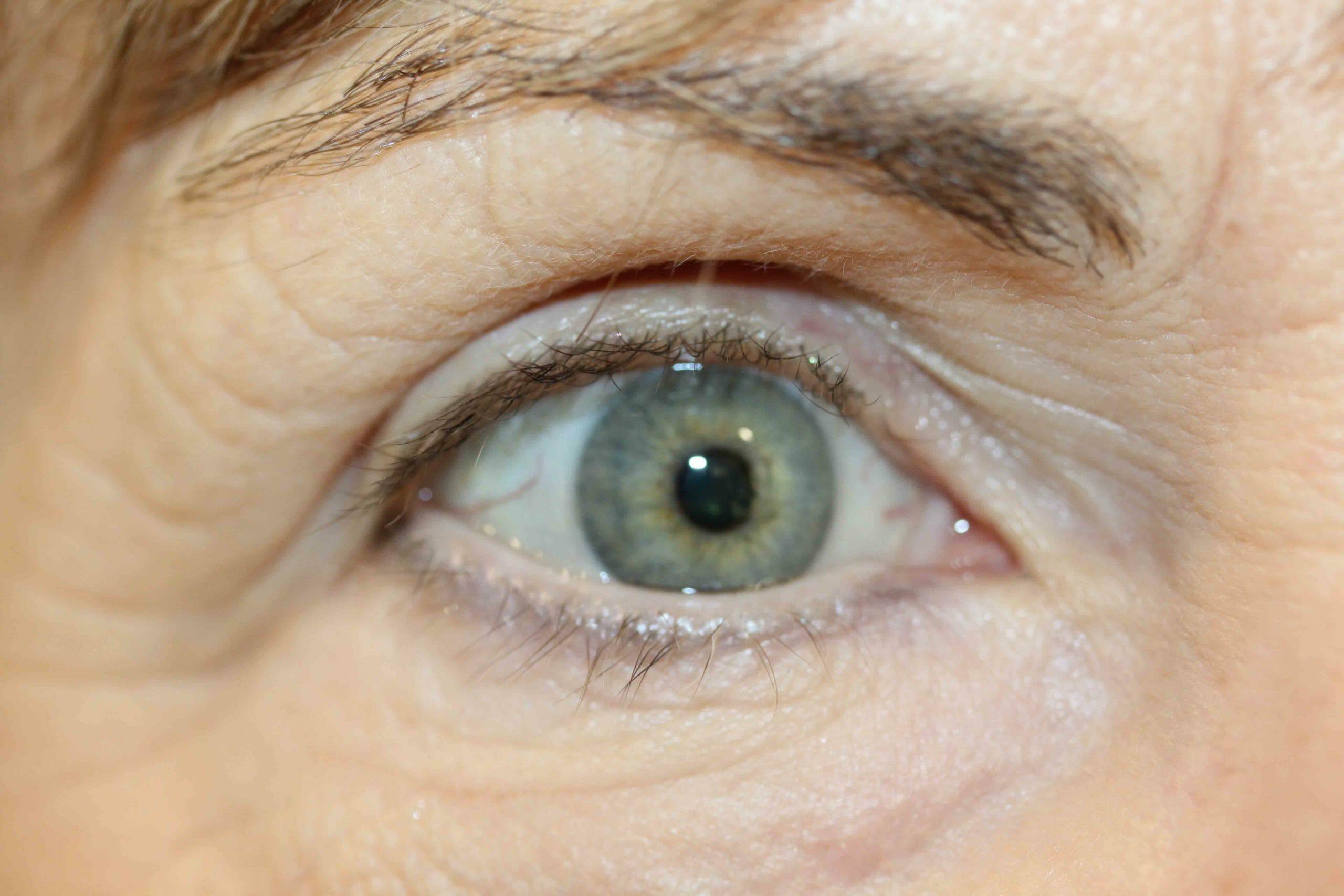 Eyeline Scaled