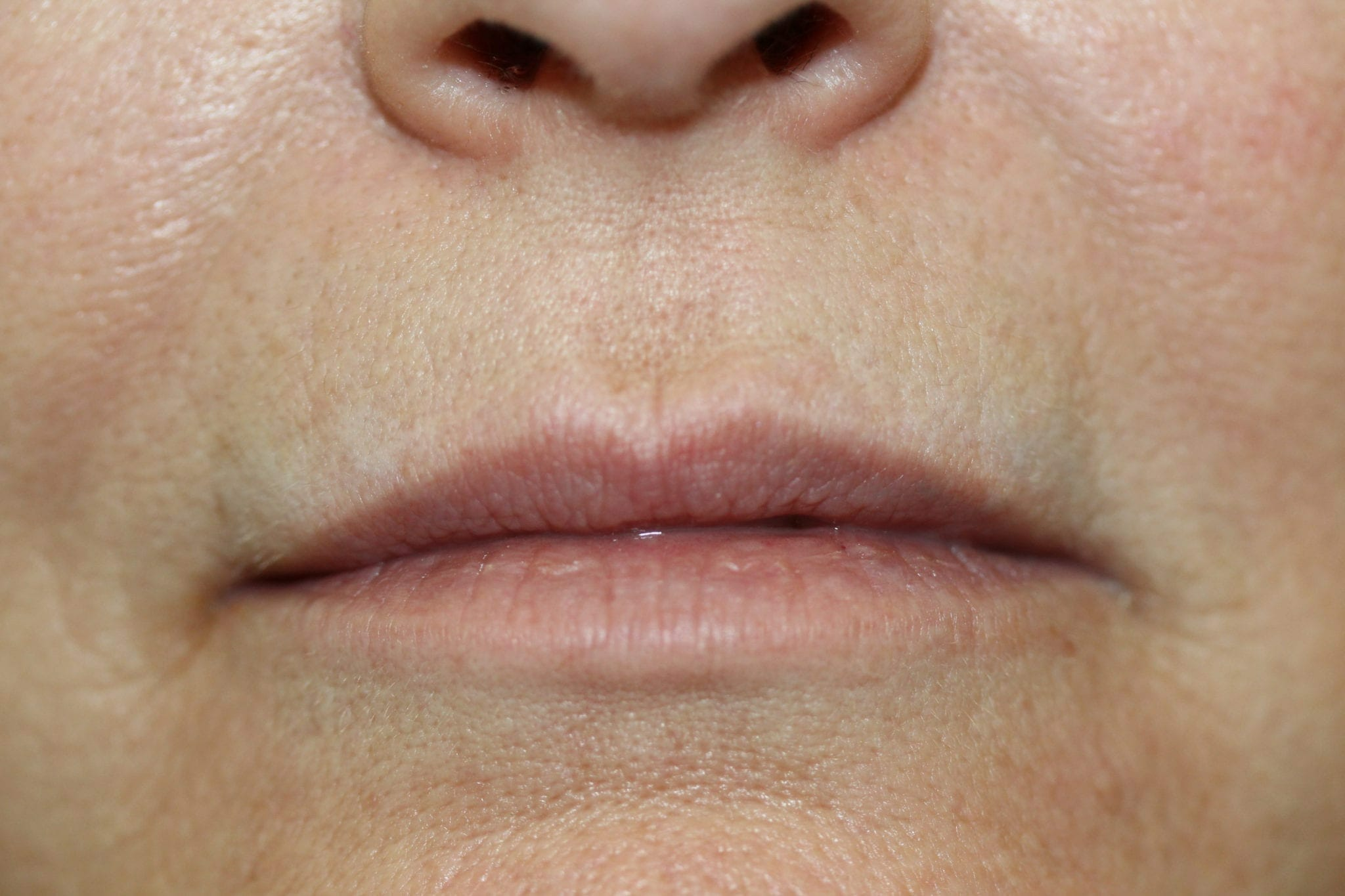Permanent Lip liner & Color before & after
