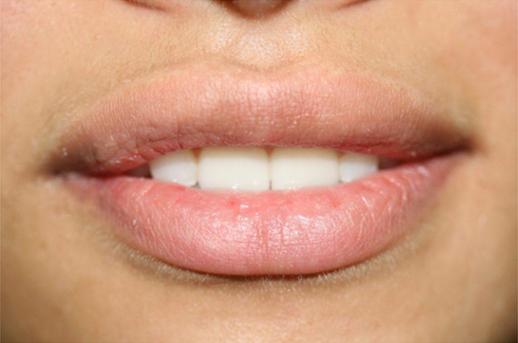 permanent-lipstick-full-lips-ruth-swissa-before-1