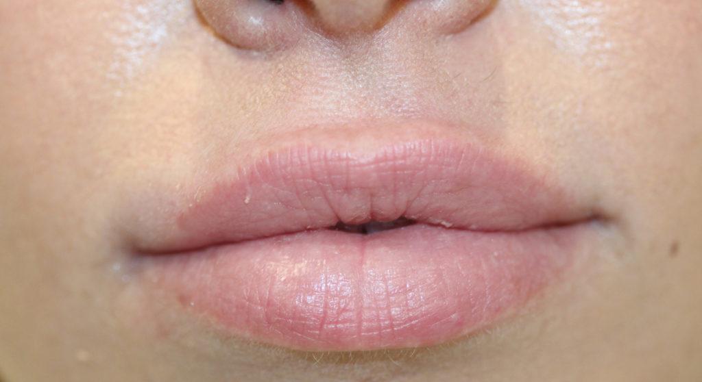 Lips 1 before