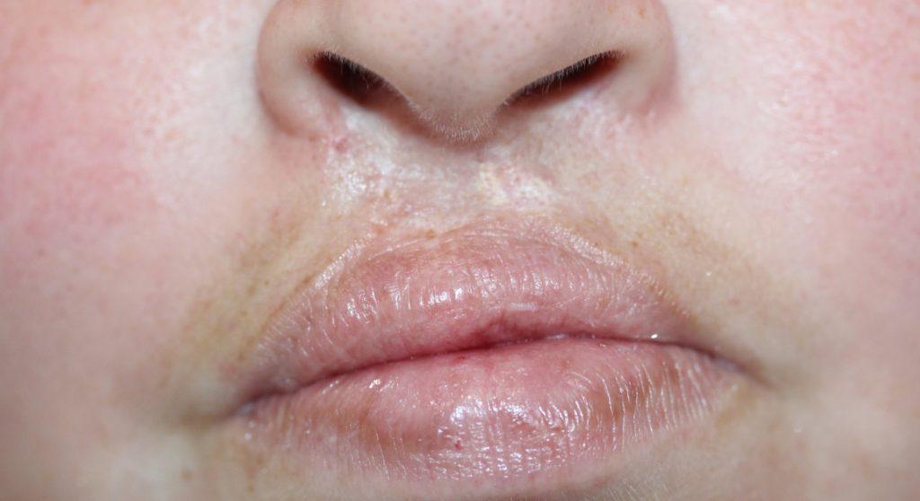 Lips 2 before
